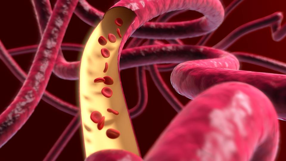 Ilustracja stworzona komputerowo przestawia sieć naczyń krwionośnych zkrwinkami czerwonymi unoszącymi się swobodnie wnaczyniu.