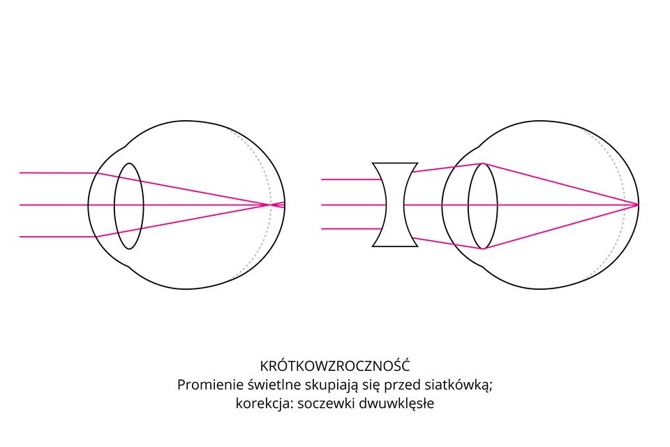 Wgalerii są rysunki, ilustrujące wady wzroku isposoby ich korekcji. Oko zlewej jest krótkowzroczne. Promienie świetlne skupiają się przed siatkówką. Wada korygowana soczewkami dwuwklęsłymi, zmieniającymi kąt załamania promieni.