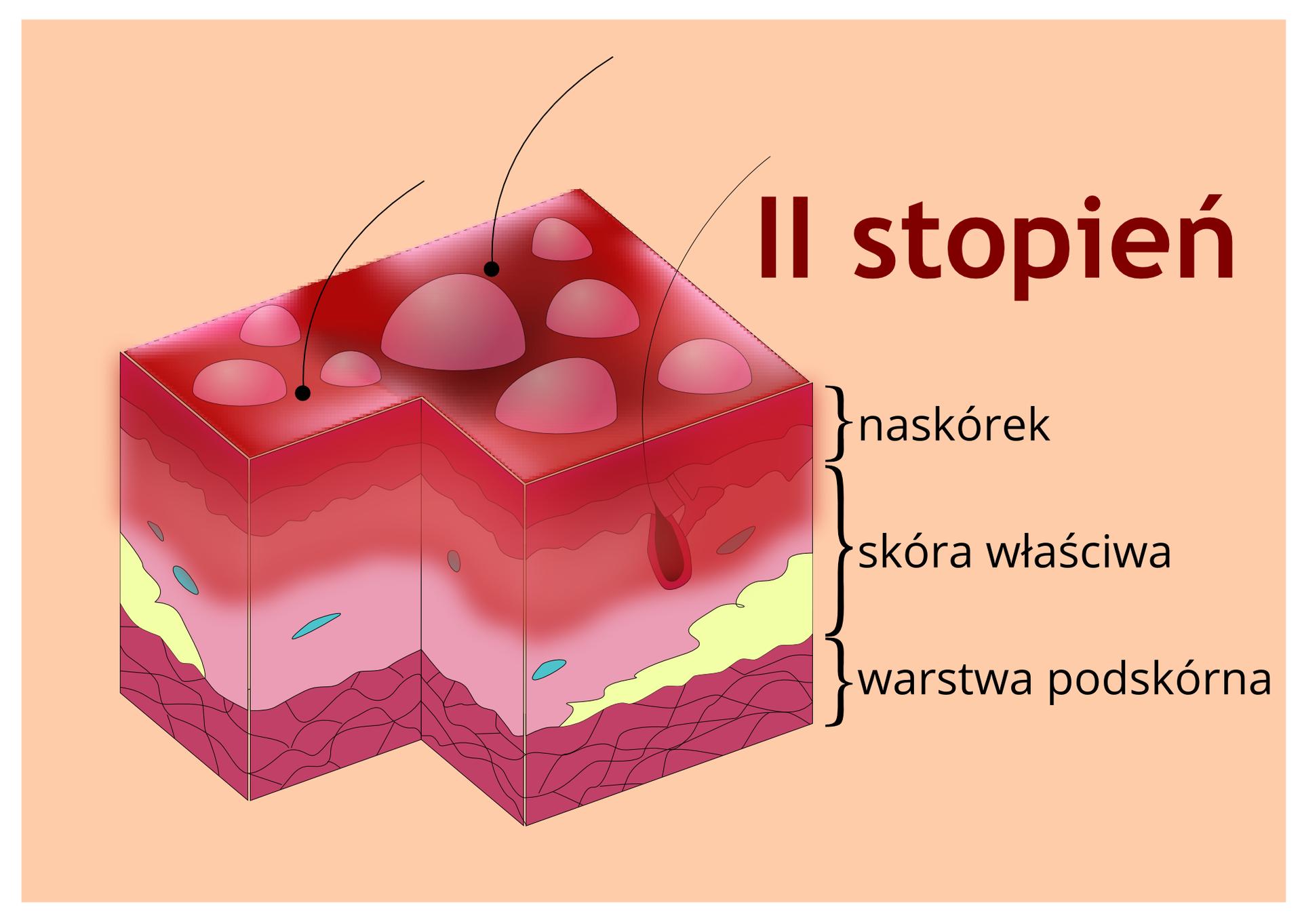 Element 2 – ilustracja omawiająca efekty II stopnia oparzenia. Łodygi włosowe wyrastają przez naskórek. Powierzchnia naskórka fioletowa, pokryta różowymi pęcherzami. Podpis: gorące płyny, wybuchy, płomienie; czas gojenia 2-4 tygodnie.