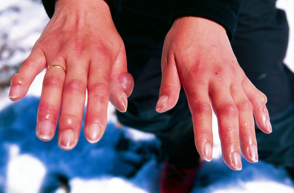 2 - fotografia poparzonych dłoni, na których widoczne są bąble