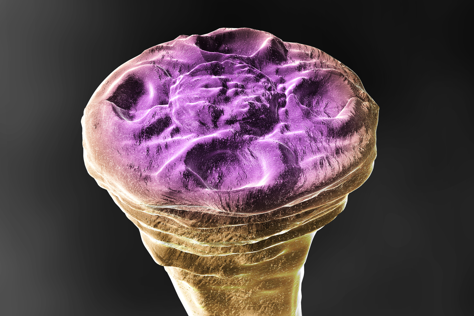 3 – główka tasiemca nieuzbrojonego, spłaszczona głowa zczterema przyssawkami