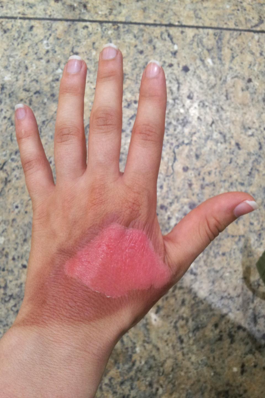Kolorowe zdjęcie dłoni pokazuje jej lewą zewnętrzna część skierowana wstronę obserwatora. Palce są wyprostowane. Połowa powierzchni dłoni pozbawiona naskórka. Miejsce poparzenia oznaczono ciemnoróżowym trapezem. Prawa strona poparzenia sięga dolnej części kciuka. Lewa strona poparzenia sięga do połowy zewnętrznej części dłoni. Wokół poparzenia ciemna brązowa skóra.