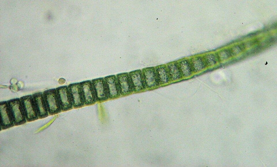 Fotografia przedstawia długą nić, złożoną zprostokątnych komórek ociemno zielonych obrzeżach. Są to sinice, organizmy, które nie mają jąder komórkowych . Są one także zdolne do fotosyntezy.