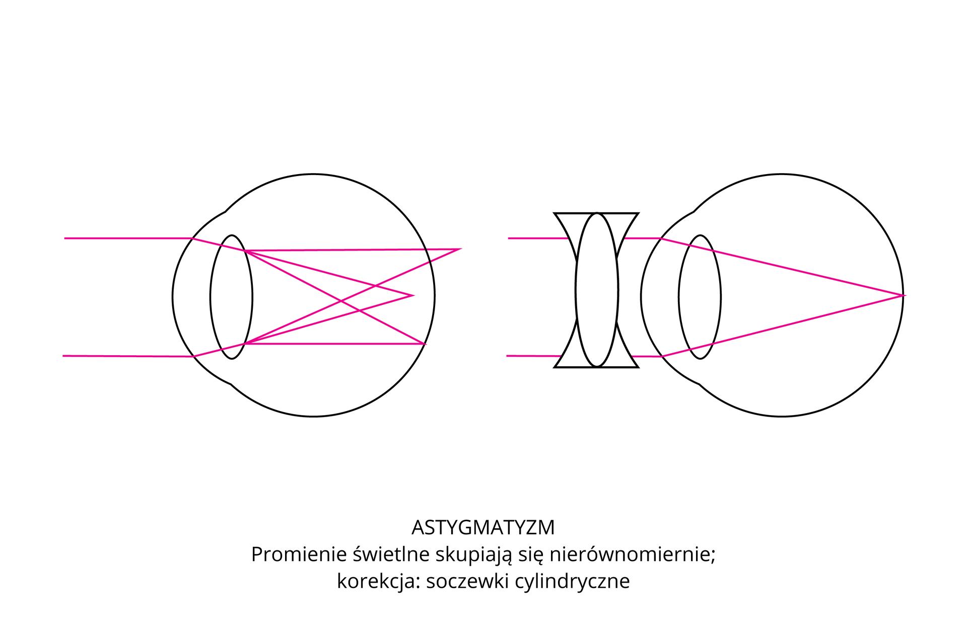Wgalerii są rysunki, ilustrujące wady wzroku isposoby ich korekcji. Oko zlewej dotknięte astygmatyzmem. Promienie świetlne skupiają się nierównomiernie. Korekcja przy pomocy soczewki cylindrycznej.