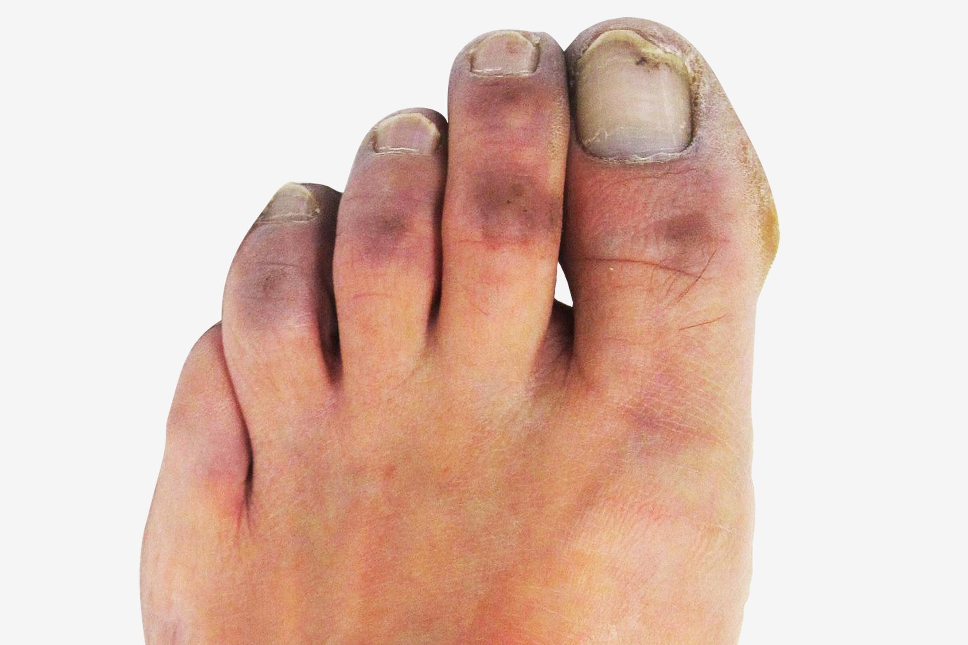Galeria 1 składa się zdwóch zdjęć. Kolorowe zdjęcie po lewej przedstawia palce stóp zgłębokim odmrożeniem II stopnia. Górna część wszystkich palców jest pokryta fioletową skórą. Paznokcie są szare.