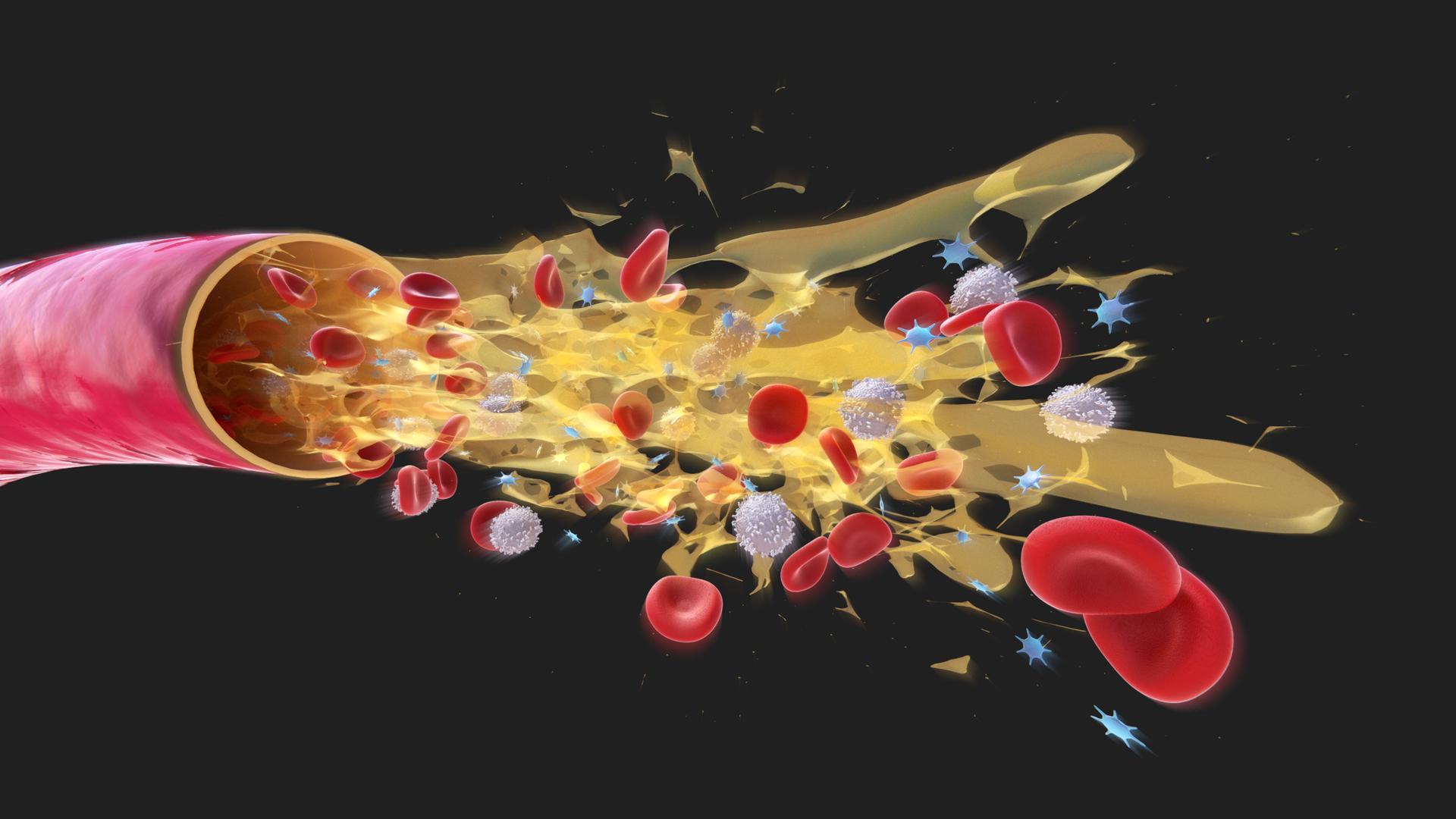 Fotografia przedstawia przecięte naczynie krwionośne , zktórego wylewa się krew. Dzięki właściwości rozpuszczania substancji woda umożliwia funkcję transportową krwi.