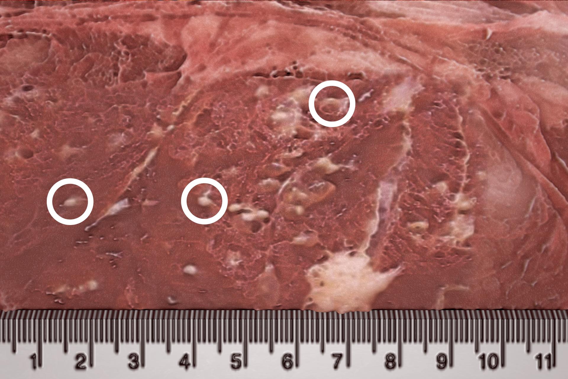 Fotografia mikroskopowa przedstawia brunatny fragment mięśnia świni. Na nim białymi kółkami zaznaczono umiejscowienie trzech larw tasiemca uzbrojonego. Udołu podziałka centymetrowa wskazuje wielkość wągrów.