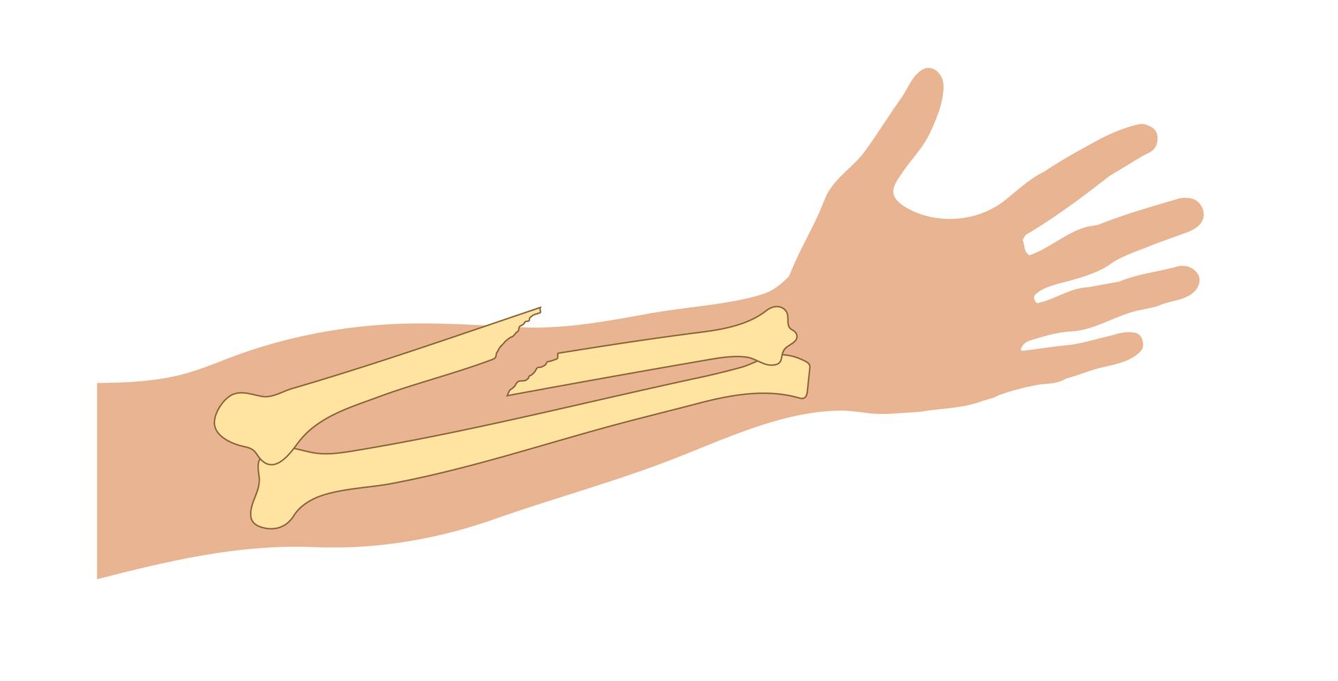 Galeria prezentuje rodzaje złamań na przykładzie rysunku przedstawiającego kości przedramienia. Ilustracja przedstawia zarys przedramienia prawej ręki skierowany wyprostowanymi palcami wprawą stronę. Na ilustrację naniesiono schematyczne rysunki kości przedramienia ułożone równolegle do siebie. Przykład numer pięć przedstawia złamanie przebiegające pod kątem ostrym do krawędzi kości. Ostro zakończony koniec kości przebija skórę iwystaje poza ciało.