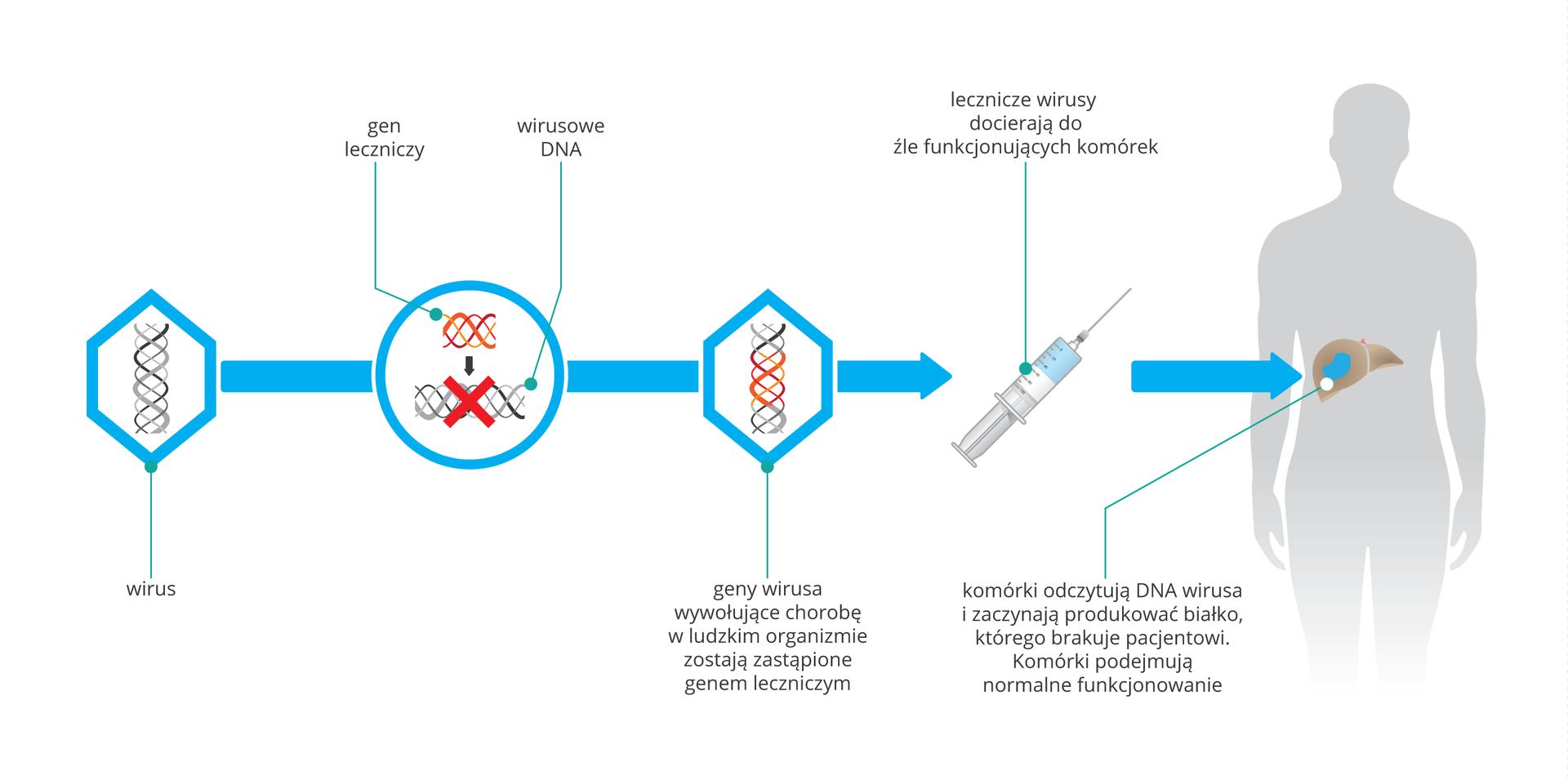 Scmematyczna ilustracja terapii genowej. Na pierwszym obrazku wirus zDNA. Na drugim wprowadzenie do DNA wirusowego fragmerntu obcego DNA. Obrazek 3: geny wirusa wywołujace chorobę zostają zastąpione nowo wprowdzonym genem. Obrazek 4 zmodyfikowane wirusy są pobierane wwszczepiane do wątroby.