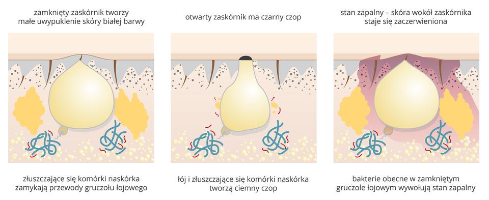 Ilustracja składa się z3 części. Na pierwszej widziany wprzekroju skóry zamknięty zaskórnik, który tworzy na powierzchni skóry białawe uwypuklenie.Na drugiej ilustracji zaskórnik - zamkniety czarnym czopem. Na trzeciej - stan zapalny zaskórnika, wokół niego nabrzmiałe tkanki.