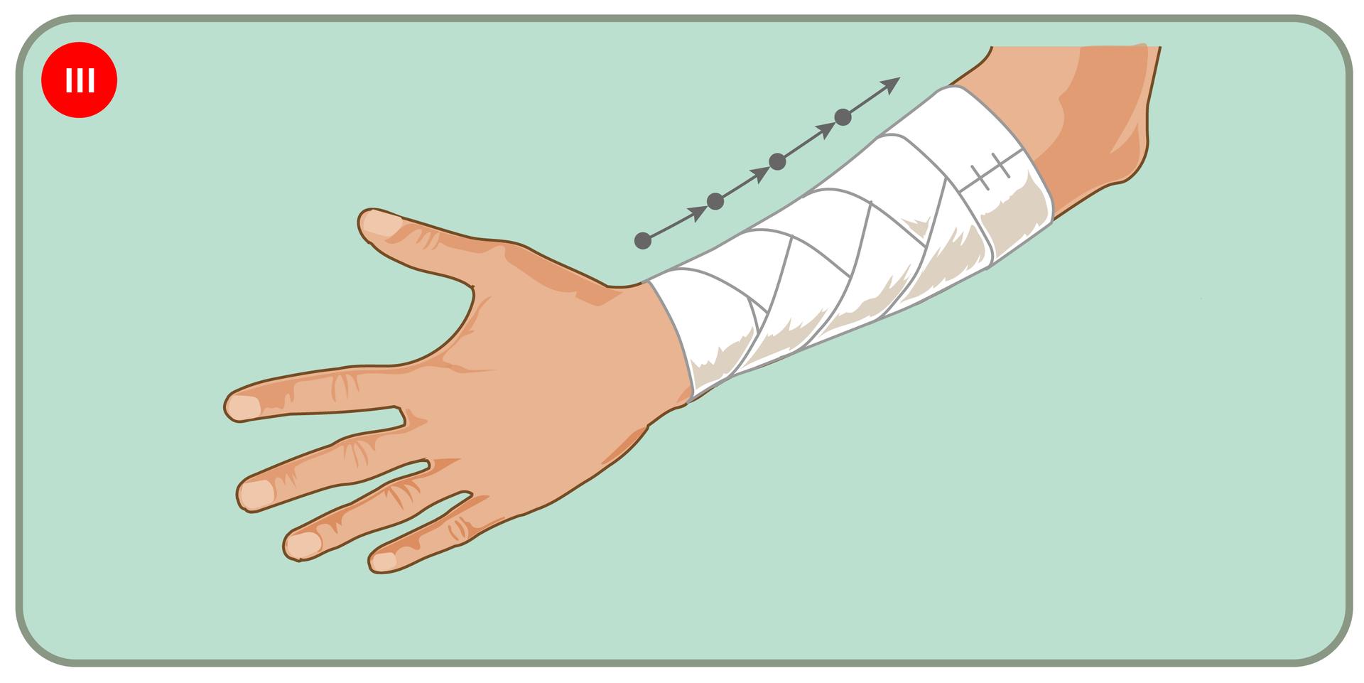 Pokaz slajdów prezentujących kolejne etapy bandażowania przedramienia opatrunkiem kłosowym.