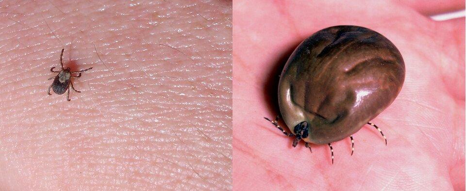 Dwa zdjęcia przedstawiające kleszcza. Pierwsze zdjęcie ilustruje kleszcza wpowiększeniu. Na drugim zdjęciu widoczny jest kleszcz po wypiciu krwi. Ciao zwierzęcia jest znacznie większe. Można ocenić wielkość ciała porównując je zgłową ikończynami.