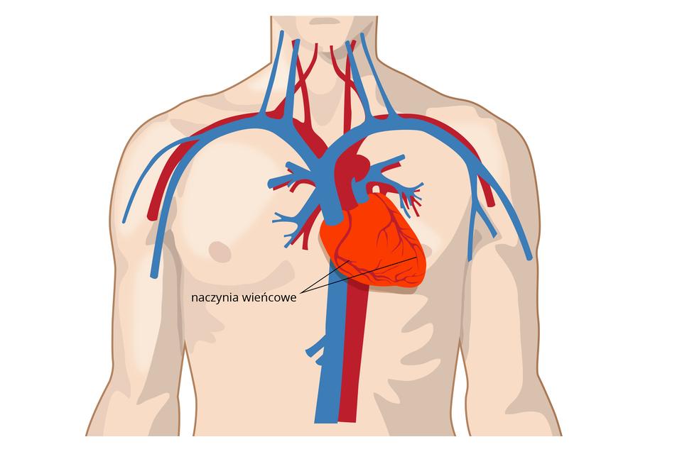 Ilustracja przedstawia różową sylwetkę torsu człowieka. Wrysowano wnim na środku klatki piersiowej jaskrawo czerwone serce. Koniuszek serca skierowany wbok. Na sercu szare rozgałęzienia, czyli naczynia wieńcowe. Ugóry iza sercem grube naczynia krwionośne: niebieskie żyły, czerwone tętnice.