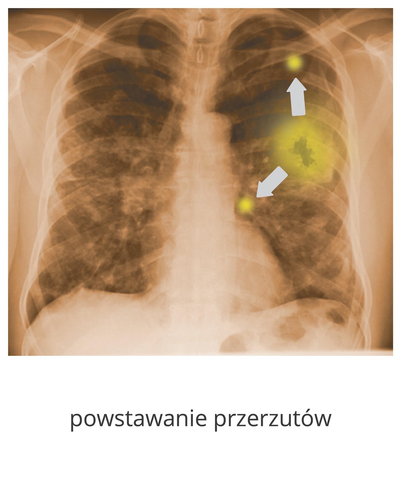 Ilustracja przedstawia rentgenogram płuc, widać duży guz wlewym płucu ikilka małych.