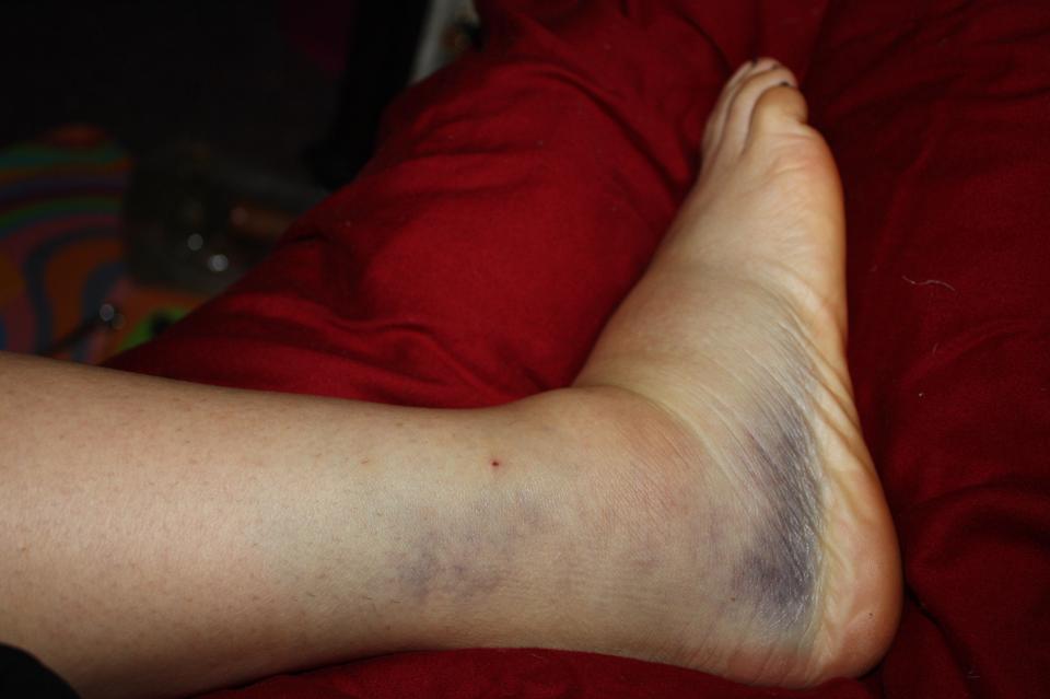 Fotografia przedstawia skutki skręcenia stawu skokowego. Zbliżenie na leżącą na czerwonej poduszce stopę iodcinek powyżej kostki. Górna część stopy opuchnięta. Poniżej kostki, wzdłuż podeszwy, siny pas skóry. Powyżej kostki fioletowe sine miejsca.