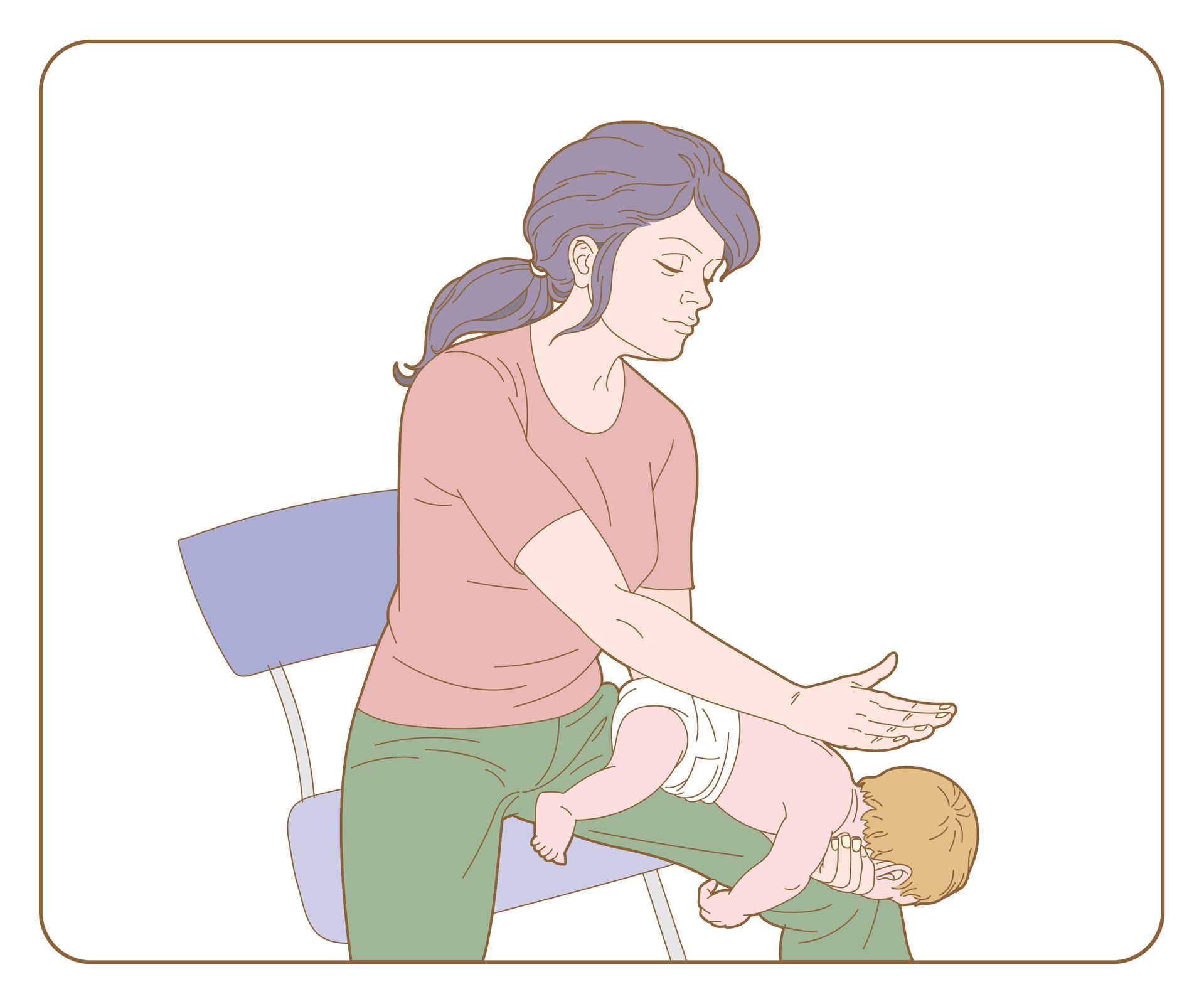 Galeria 1 składa się zdwóch ilustracji ułożonych poziomo obok. Lewa ilustracja przedstawia kobietę siedzącą na krześle. Kobieta siedzi skierowana przodem do obserwator. Nogi wlekkim rozkroku. Na prawej nodze kobiety ułożone niemowlę głową wdół. Prawe przedramię kobiety położone jest na nodze, na przedramieniu niemowlę. Dziecko leży na brzuchu. Dłoń kobiety przytrzymuje głowę dziecka poniżej brody. Głowa dziecka umieszczona jest na wysokości kolana kobiety. Lewa ręka kobiety znajduje się nad plecami dziecka. Nadgarstkiem uderza dziecko wplecy, między łopatkami.