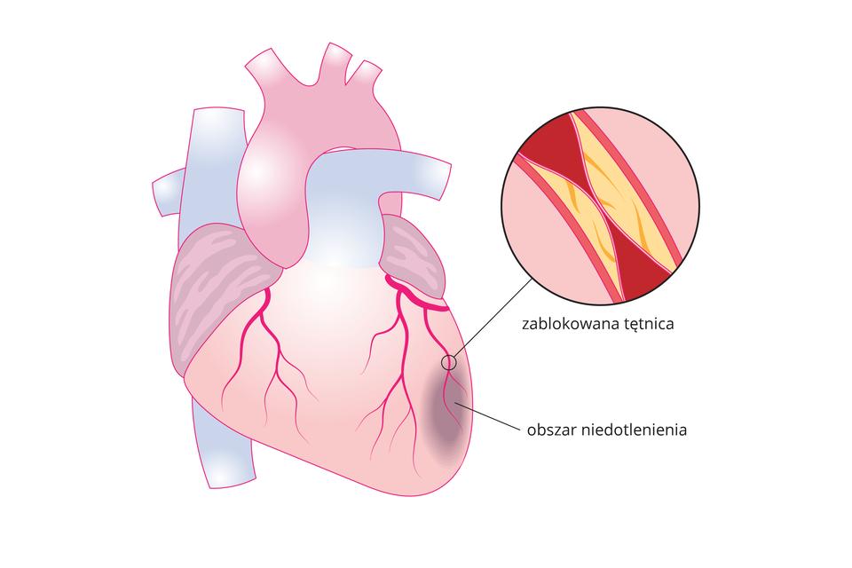 Ilustracja przedstawia schematyczny rysunek serca wraz zobrazem fragmentu tętnicy wzbliżeniu. Powierzchnia serca jest różowa, atętnice oraz żyły łączące się zsercem są błękitne. Wgórnej części serca mieści się aorta. Powierzchnię serca tworzą czerwone naczynia krwionośne, które rozgałęziają się ku dołowi. Zaznaczony na obrazie fragment tętnicy wzbliżeniu znajduje się po prawej stronie wkole zczarną obwódką. Pokazano na nim, że tętnica jest zablokowana złogami cholesterolu do poziomu uniemożliwiającego swobodny przepływ krwi. Poniżej zwężonej tętnicy zaznaczono ciemną owalną plamą obszar niedotlenienia mięśnia sercowego.