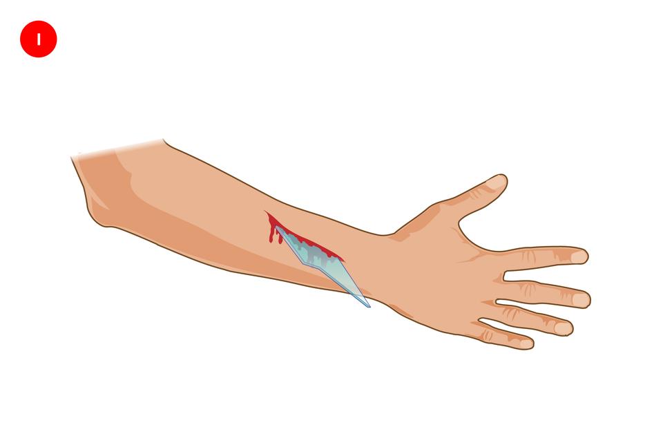 Galeria składa się ztrzech ilustracji prezentujących sposób opatrywania rany zciałem obcym. We wszystkich trzech przypadkach na ilustracji prezentowana jest prawa ręka skierowana zewnętrzną stroną do obserwatora, zwyprostowanymi palcami po prawej stronie. Powyżej nadgarstka podłużne miejsce zranienia zwbitym kawałkiem szkła tkwiącym pionowo wranie.