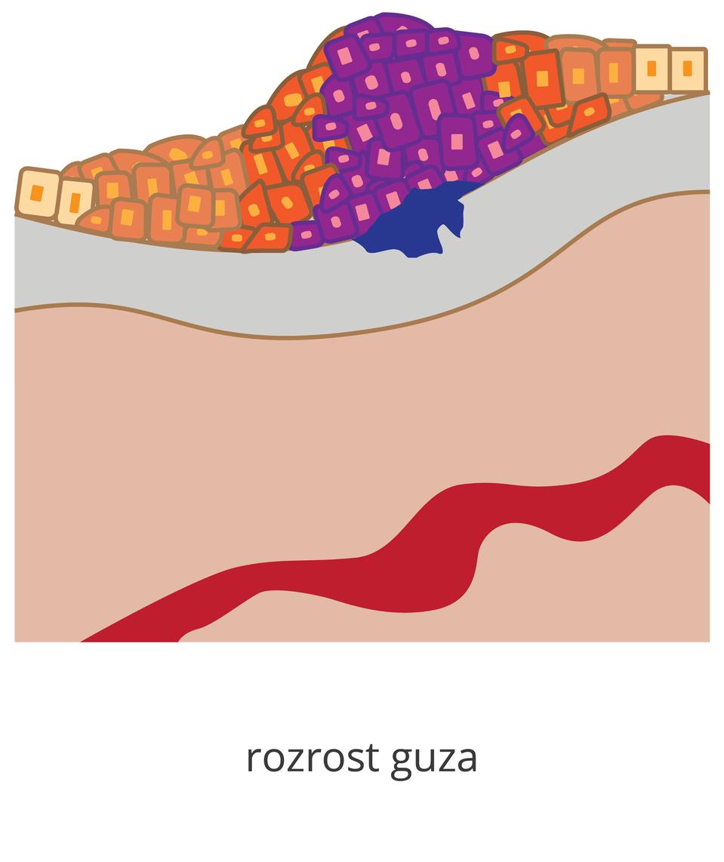 Ilustracja przedstawia węekszy guz, zmienione komórki występują już w3 warstwach tkanek.