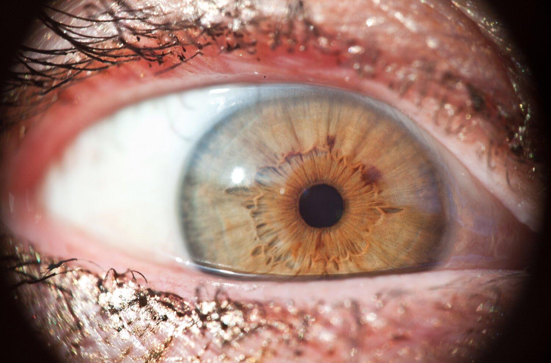 [oko], [łoko] [oko], [łoko] Źródło: Małgorzata Skibińska, Contentplus.pl sp. zo.o., fotografia barwna, licencja: CC BY 3.0.