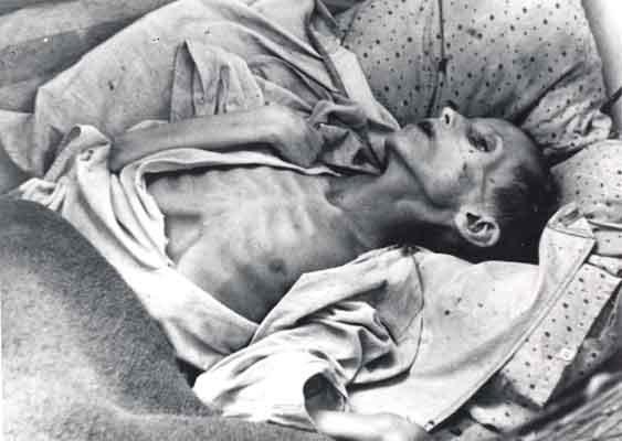 Ofiara głodu wZSRR Jedna zofiar głodu wZSRR Ofiara głodu wZSRR Jedna zofiar głodu wZSRR Źródło: domena publiczna.