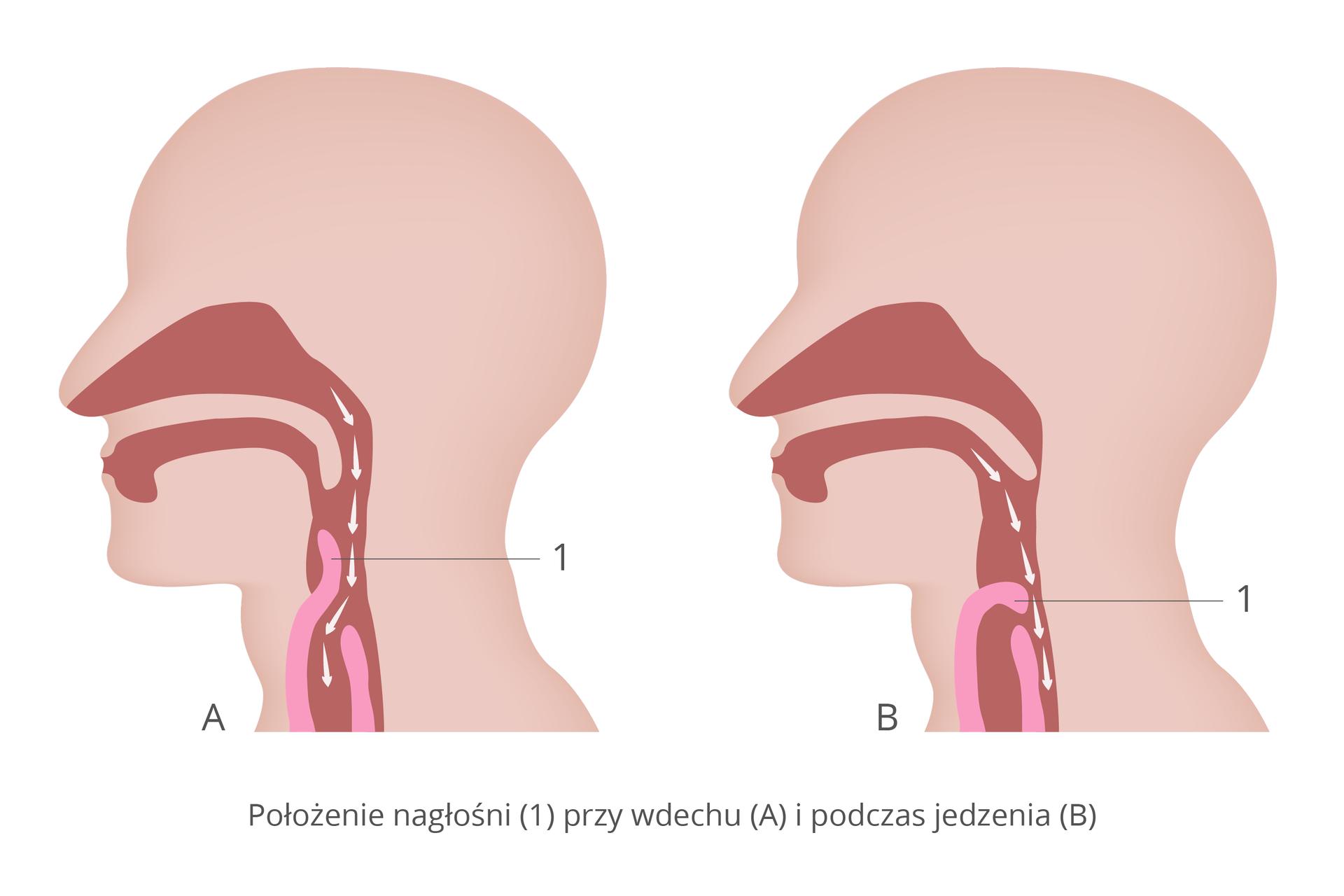 Ilustracja przedstawia zprofilu dwie sylwetki głowy człowieka. Wrysowano ciemnoróżowe drogi oddechowe zjasnoróżową nagłośnią, opisaną cyfrą jeden. Po lewej sytuacja przy wdechu: nagłośnia uniesiona do góry, powietrze (strzałki) wchodzi do dróg oddechowych. Zprawej sytuacja przy przełykaniu: nagłośnia opuszczona, drogi oddechowe zamknięte. Pokarm przechodzi do przełyku.