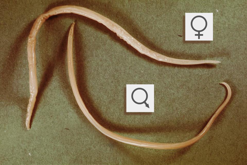 4 – glista ludzka, nitkowate ciało samca isamicy