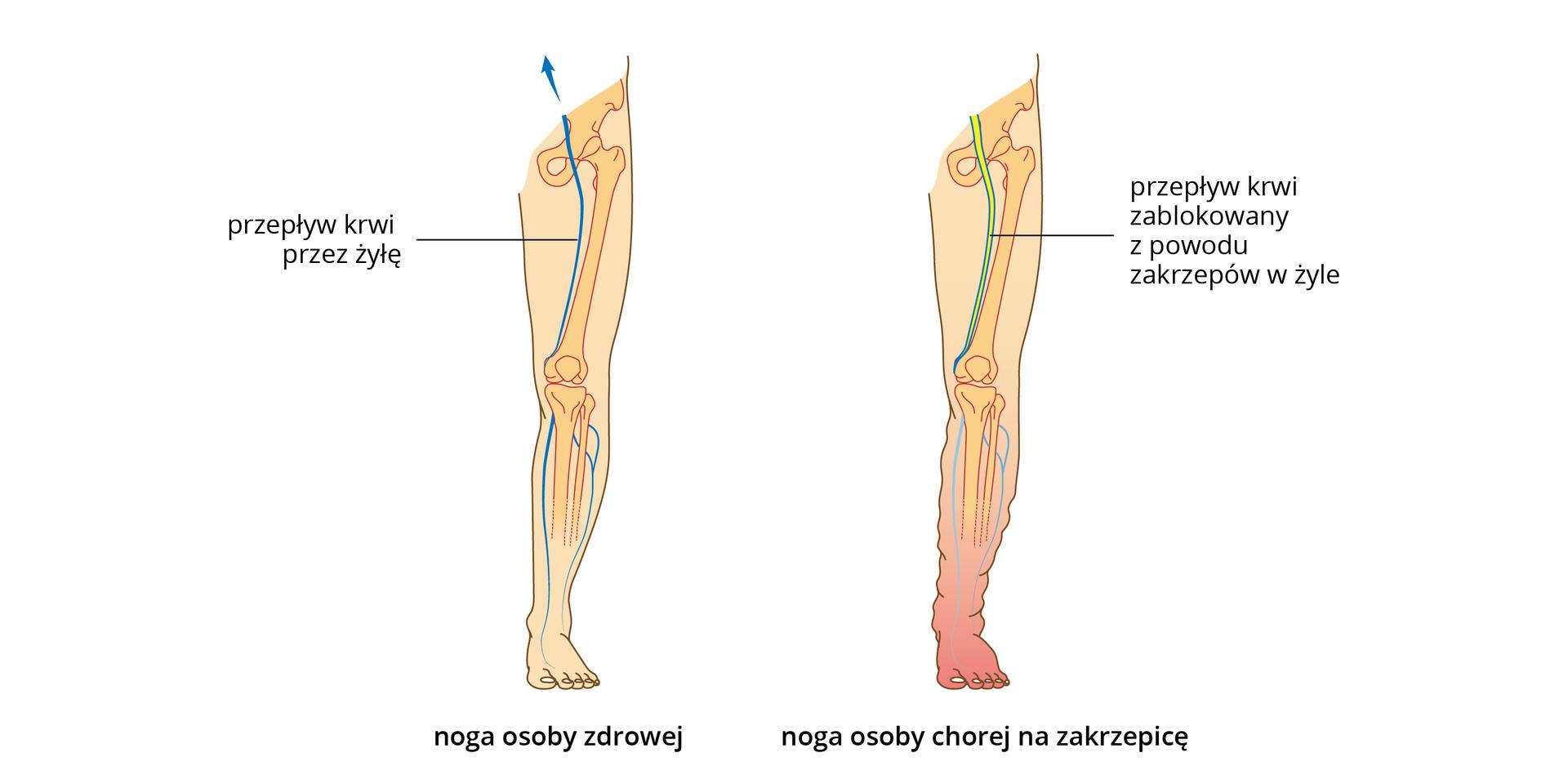 Ilustracja przedstawia różowe sylwetki nóg człowieka, zwrysowanymi kośćmi iżyłami. Noga po lewej jest zdrowa. Wnodze po prawej ugóry żółtym kolorem ukazano zakrzepy, blokujące żyłę. Noga na dole jest zaczerwieniona iobrzęknięta.