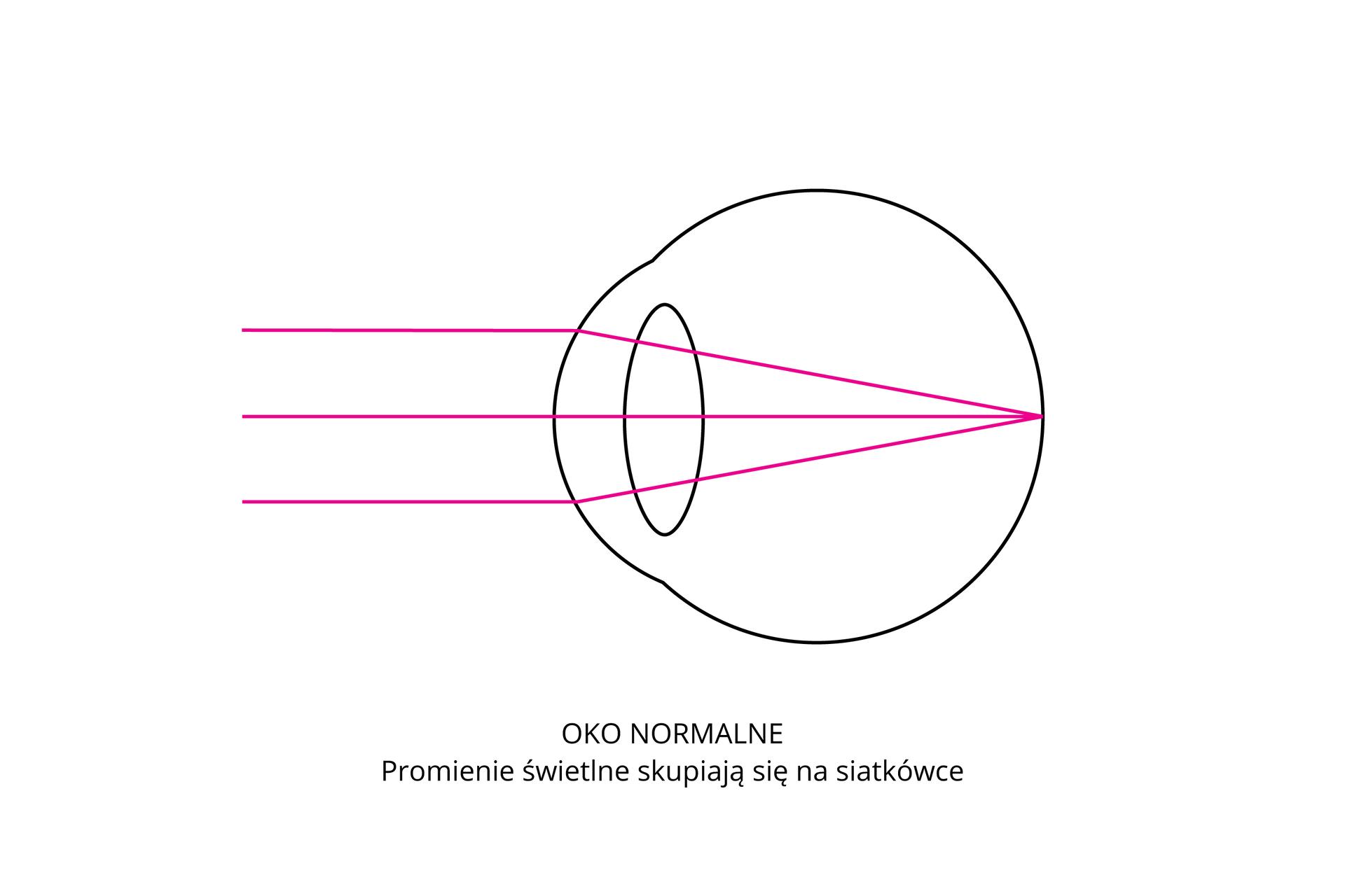 Wgalerii są rysunki, ilustrujące wady wzroku isposoby ich korekcji. Ilustracja przedstawia oko normalne. Różowe promienie świetlne skupiają się na siatkówce.