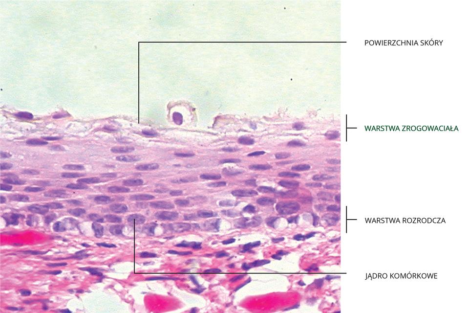 Ilustracja przedstawia błękitno – fioletowy obraz mikroskopowy nabłonka wielowarstwowego skóry zopisami. Od góry: powierzchnia skóry, warstwa zrogowaciała, warstwa rozrodcza, jądro komórkowe. Górna warstwa skóry ma komórki luźno ułożone, odrywające się. Pod nimi komórki nabłonka płasko ułożone, nie każda ma jądro. Warstwa rozrodcza zawiera komórki żywe, zdużymi jądrami komórkowymi. Poniżej naskórka jest wyraźnie granulowana, różowoczerwona warstwa skóry właściwej.