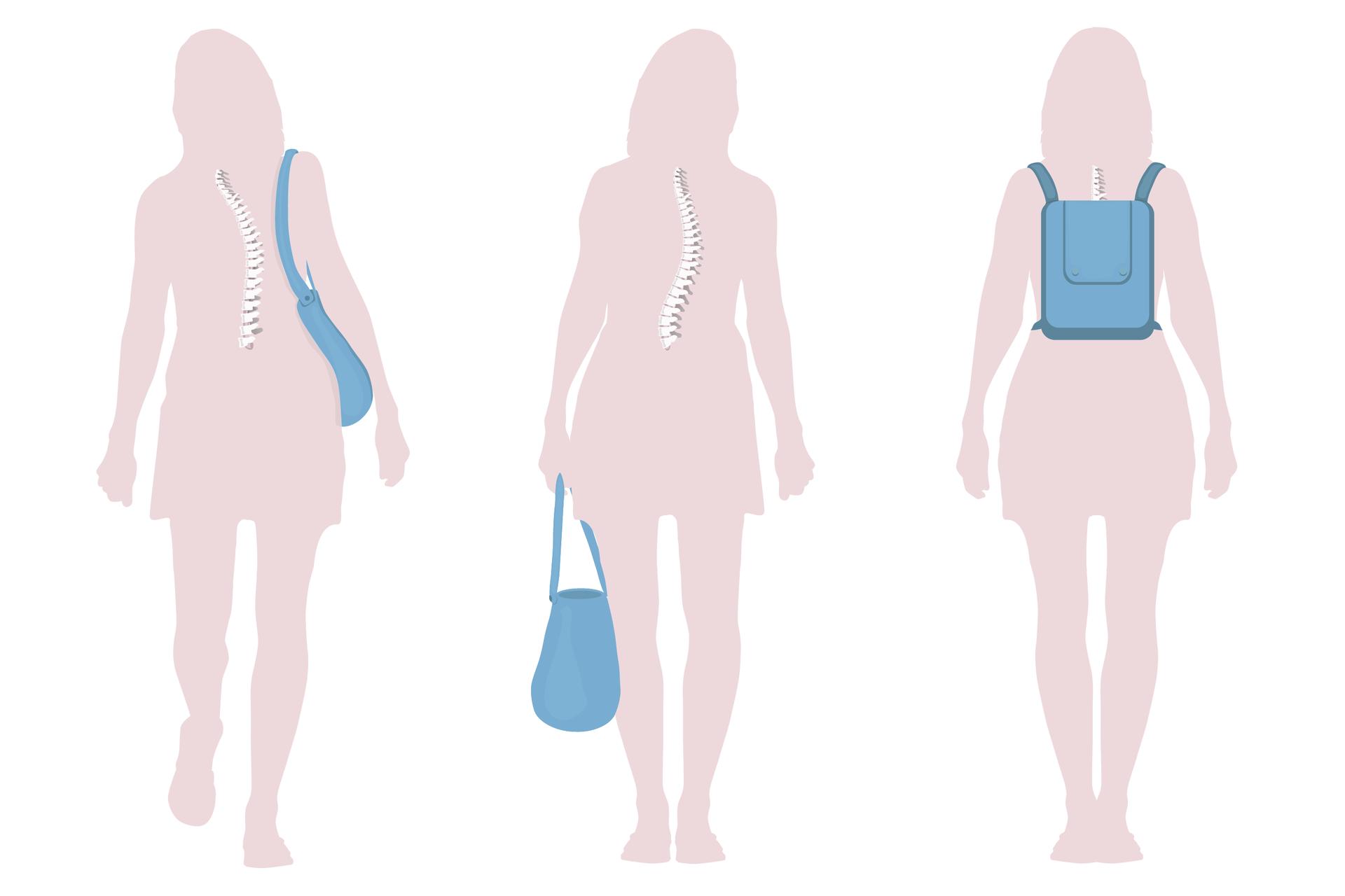 Ilustracja przedstawia 3 liliowe sylwetki kobiety od tyłu. Wkażdej wrysowano biały kręgosłup. Kobieta zlewej niesie niebieską torbę na prawym ramieniu. Kręgosłup jest mocno bocznie wygięty, ciało pochylone wlewo. Kobieta wśrodku niesie niebieską torbę wlewej ręce. Kręgosłup bocznie wygięty, lewe biodro wysunięte. Kobieta prawej na niebieski plecak. Kręgosłup prosty, ciało ma prawidłową postawę.