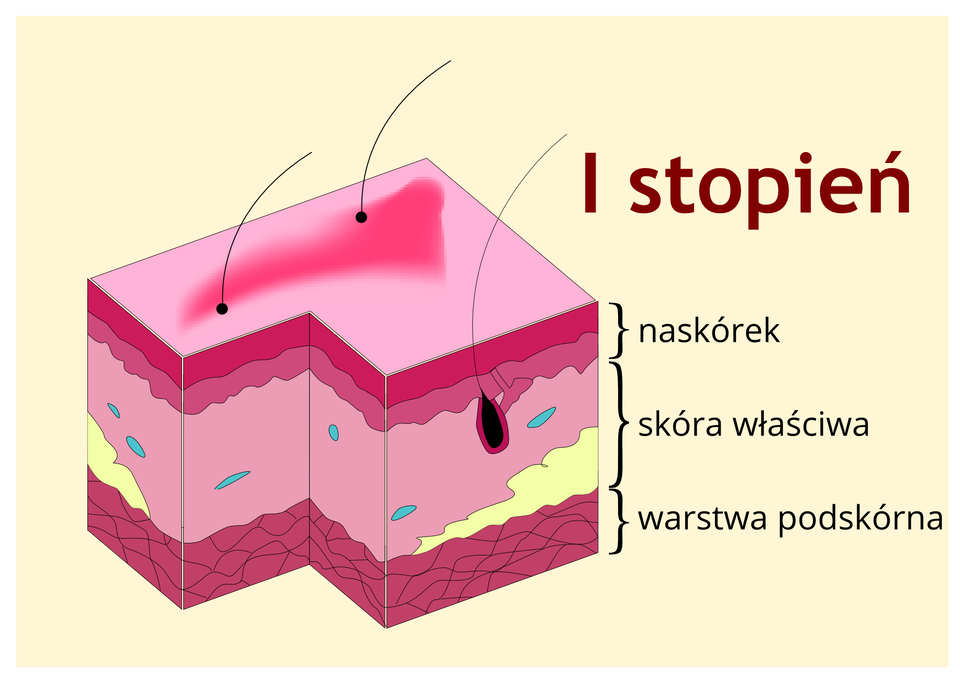 Galeria 1 składa się z3 elementów. Trzy ilustracje opisują I, II iIII stopień oparzenia. Na każdej ilustracji znajduje się wycinek skóry wkształcie prostopadłościanu. Skóra jest podzielona na trzy warstwy: na samej górze mieści się naskórek, poniżej skóra właściwa, zaś najgłębiej iwarstwa podskórna. Element 1 – ilustracja przedstawiająca efekty Istopnie oparzenia. Łodygi włosowe wyrastają przez naskórek. Mieszek włosowy czarny wskórze właściwej. Niewielka czerwona plama na naskórku. Podpis: oparzenia słoneczne, czas gojenia od 3 do 6 dni.