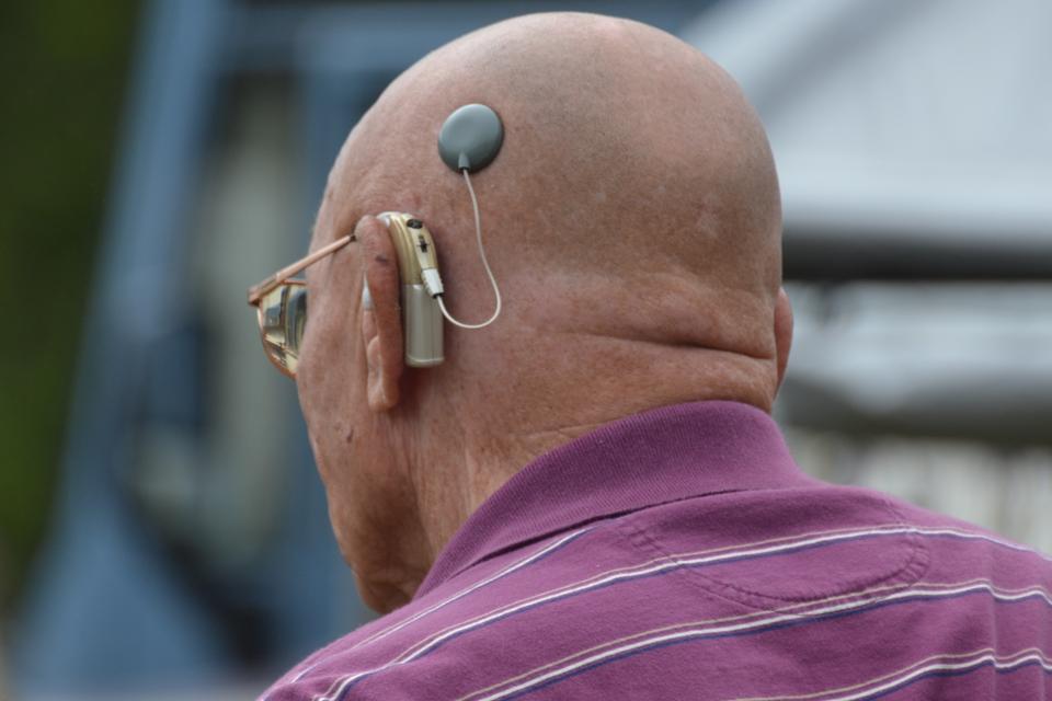 Fotografia przedstawia od tyłu głowę łysego mężczyzny. Za uchem ma zamocowany beżowy aparat słuchowy. Od niego przewód do wszczepionego, czarnego implantu słuchowego.
