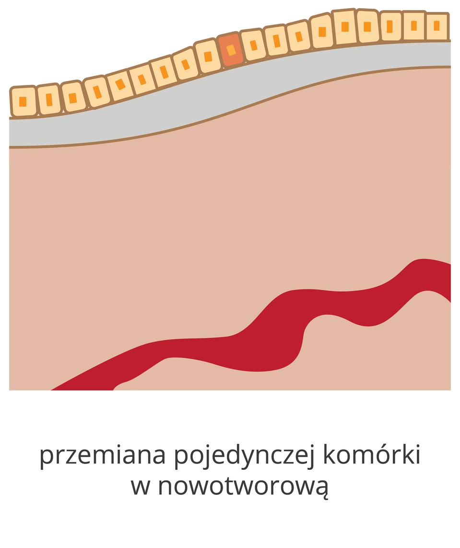 Schemat przedstawia pojedynczą komórkę, wktórej zaszła zmiana nowotworowa.