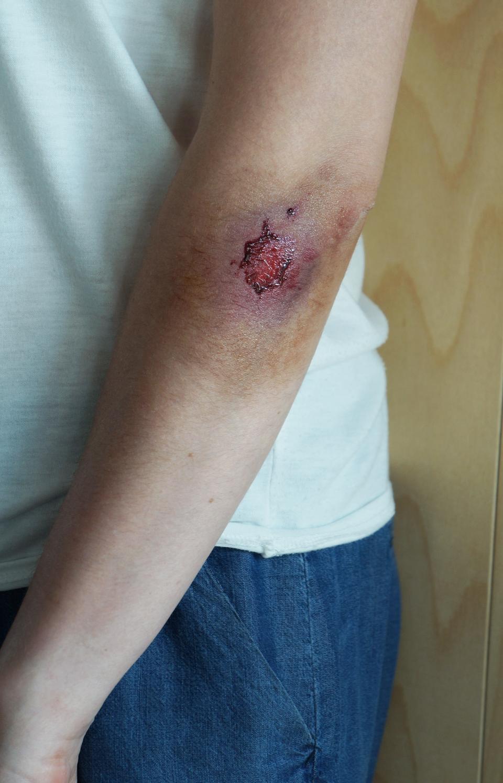 Galeria siedmiu zdjęć prezentujących różne rodzaje ran. Zdjęcie numer pięć przedstawia ranę tłuczoną. Zbliżenie na lewą rękę osoby poszkodowanej. Na łokciu ipowyżej niego zdarty naskórek. Wokół rany sine zabarwienie skóry.