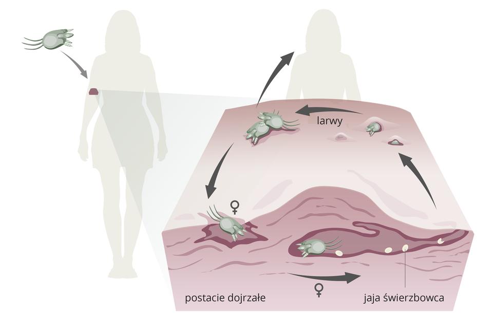 Schemat przedstawiający skórę zaatakowaną przez świerzbowca, Widać osobniki wkanałach wydrążonych wskórze, samica składa wnich jaja. Na powierzchni skóry widać larwy świerzbowca.