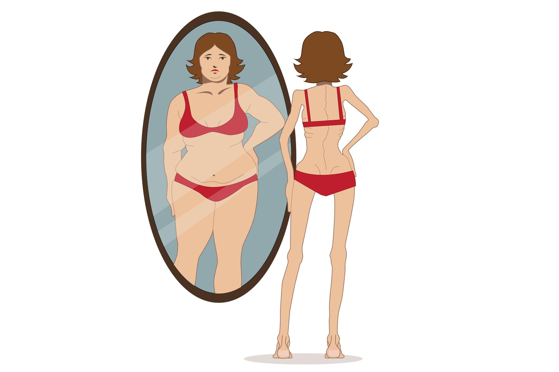 Ilustracja przedstawia chudą dziewczynę zbrązowymi włosami iwczerwonym bikini przed lustrem. Wlustrze fałszywy obraz otyłej dziewczyny. Ma smutną minę.