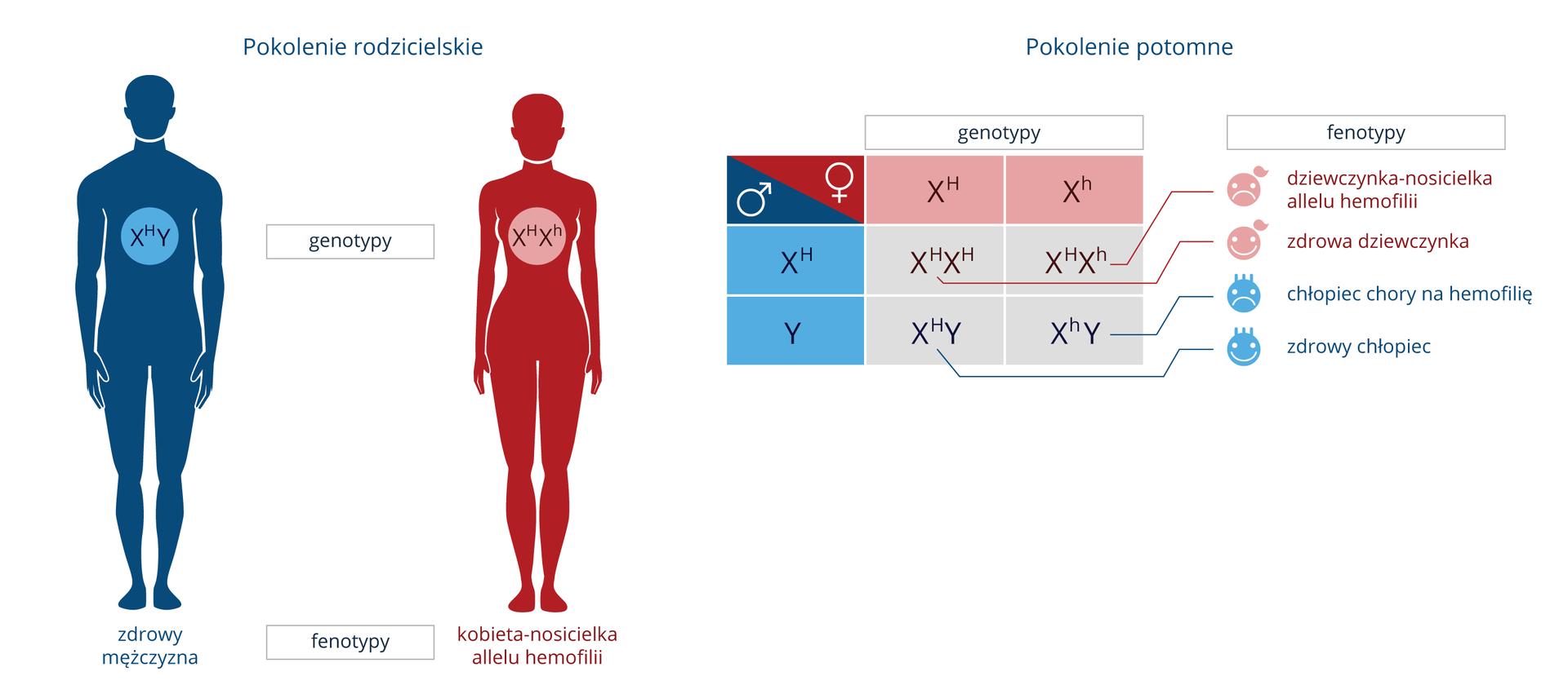 Ilustracja przedstawia schemat dziedziczenia hemofilii uludzi. Zlewej niebieska sylwetka zdrowego mężczyzny, genotyp XDY. Zprawej czerwona sylwetka kobiety nosicielki, genotyp XDXd. Dalej krzyżówka genetyczna tej pary. Wpokoleniu potomnym tej pary będzie dwoje zdrowych dzieci, dziewczynka ichłopiec (emotikony uśmiechnięte). Drugi chłopiec będzie chory na hemofilię, adruga dziewczynka będzie nosicielką allelu hemofilii (emotikony skrzywione).