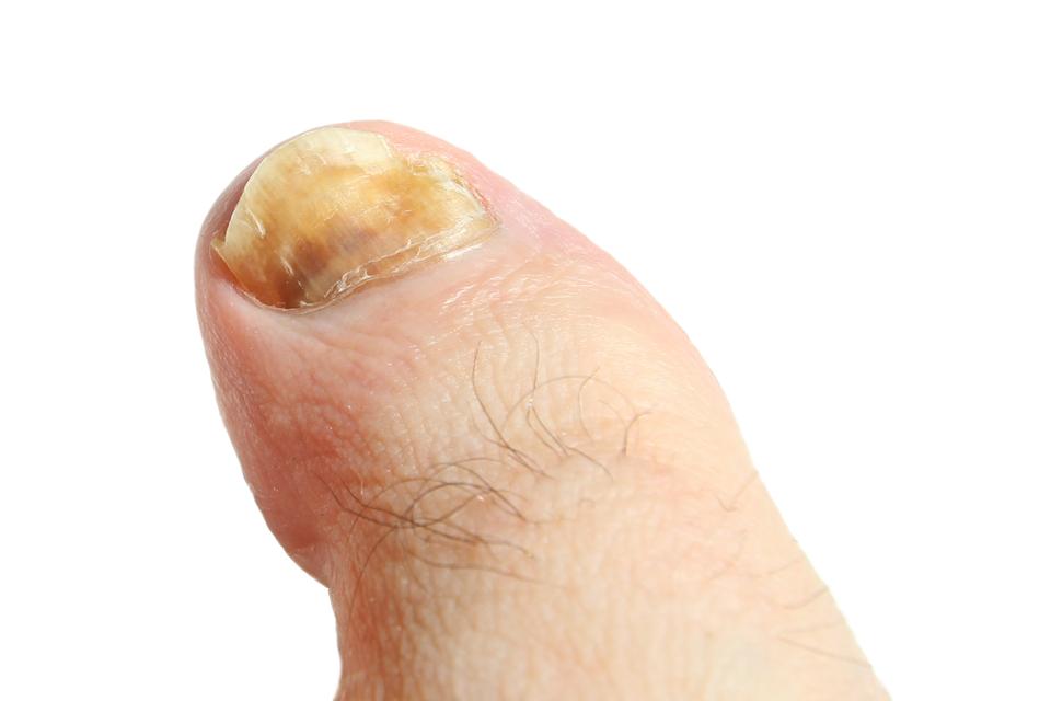slajd 3 - paznokieć palca zaatakowany grzybicą
