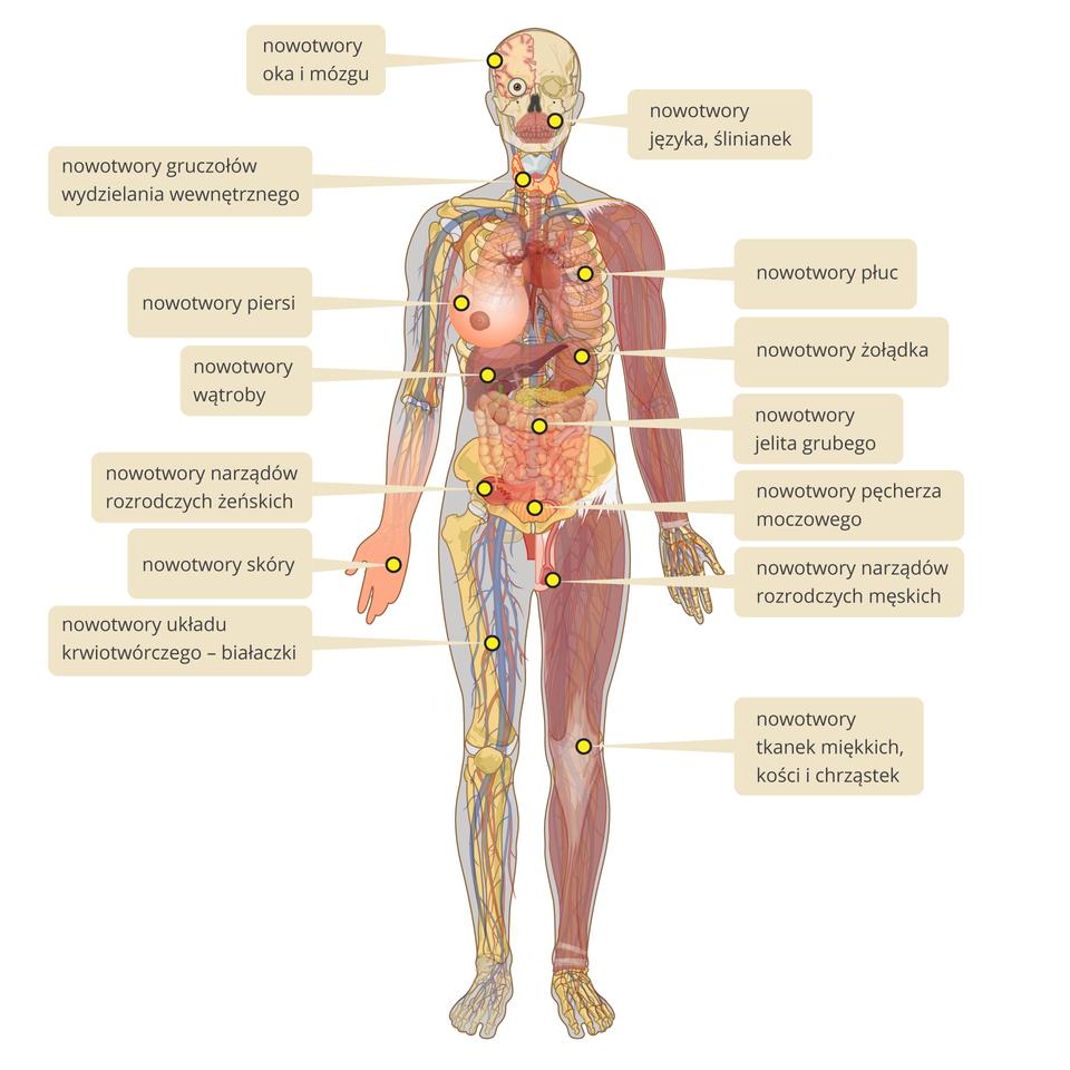Ilustracja przedstawia sylwetkę człowieka. Widoczne układy krążenia, kostny, mięśniowy. Zaznaczono narządy wewnętrzne oraz męskie iżeńskie narządy płciowe. Żółte kropki zaznaczają miejsca występowania najczęściej spotykanych nowotworów. Po kliknięciu rozwija się opis.