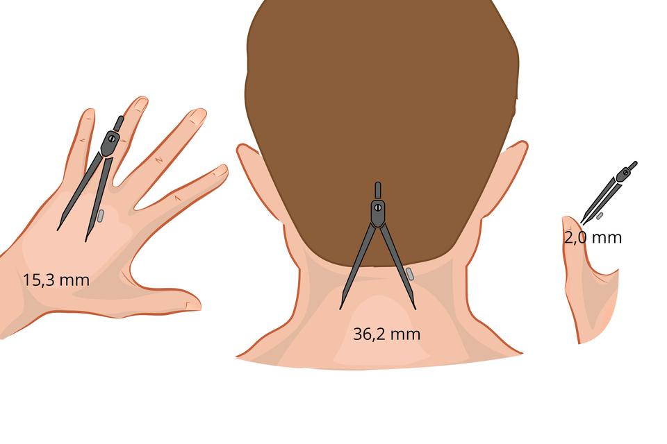 Ilustracja przedstawia tył głowy zbrązowymi włosami , po bokach podniesioną lewą dłoń ikciuk prawej ręki człowieka. Palce dłoni są rozstawione. Na dłoni, karku ikciuku umieszczony jest szary cyrkiel. Wten sposób przedstawiono badanie rozmieszczenia receptorów dotyku wskórze. Dłoń zoznaczoną odległością 15,3 milimetra. Kark człowieka zodległością 36,2 milimetra. Kciuk zodległością 2 milimetry.