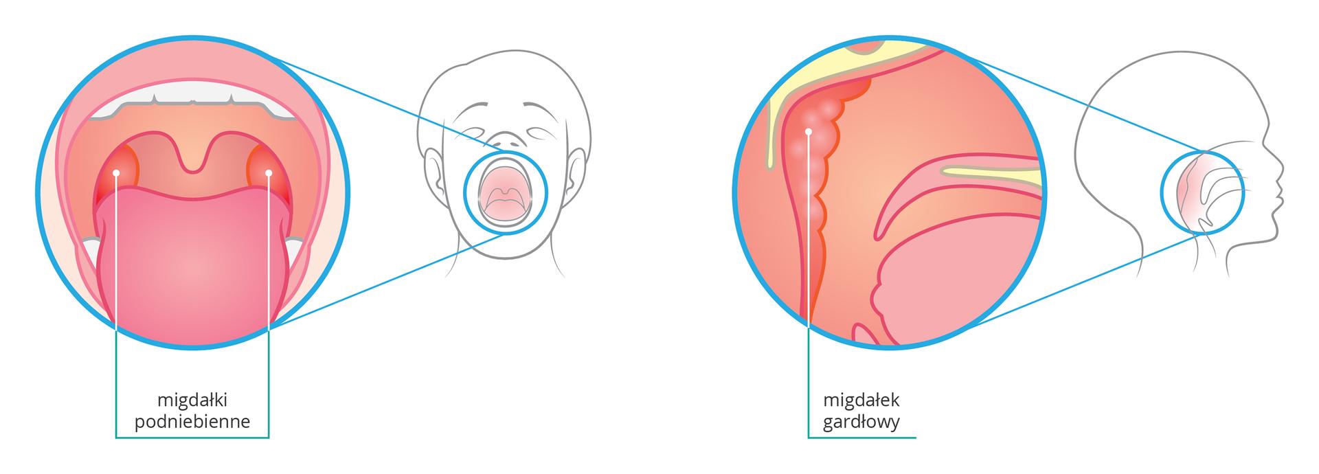 Ilustracja przedstawia dwa kolorowe rysunki gardła człowieka: wprost iprofilem. Obok powiększeń schematyczne rysunki głowy człowieka zszeroko otwartymi ustami. Zlewej wgłębi za różowym językiem wskazano pomarańczowe migdałki podniebienne po obu stronach gardła. Zprawej na powiększeniu wskazano groniasty migdałek gardłowy na tylnej ścianie gardła.