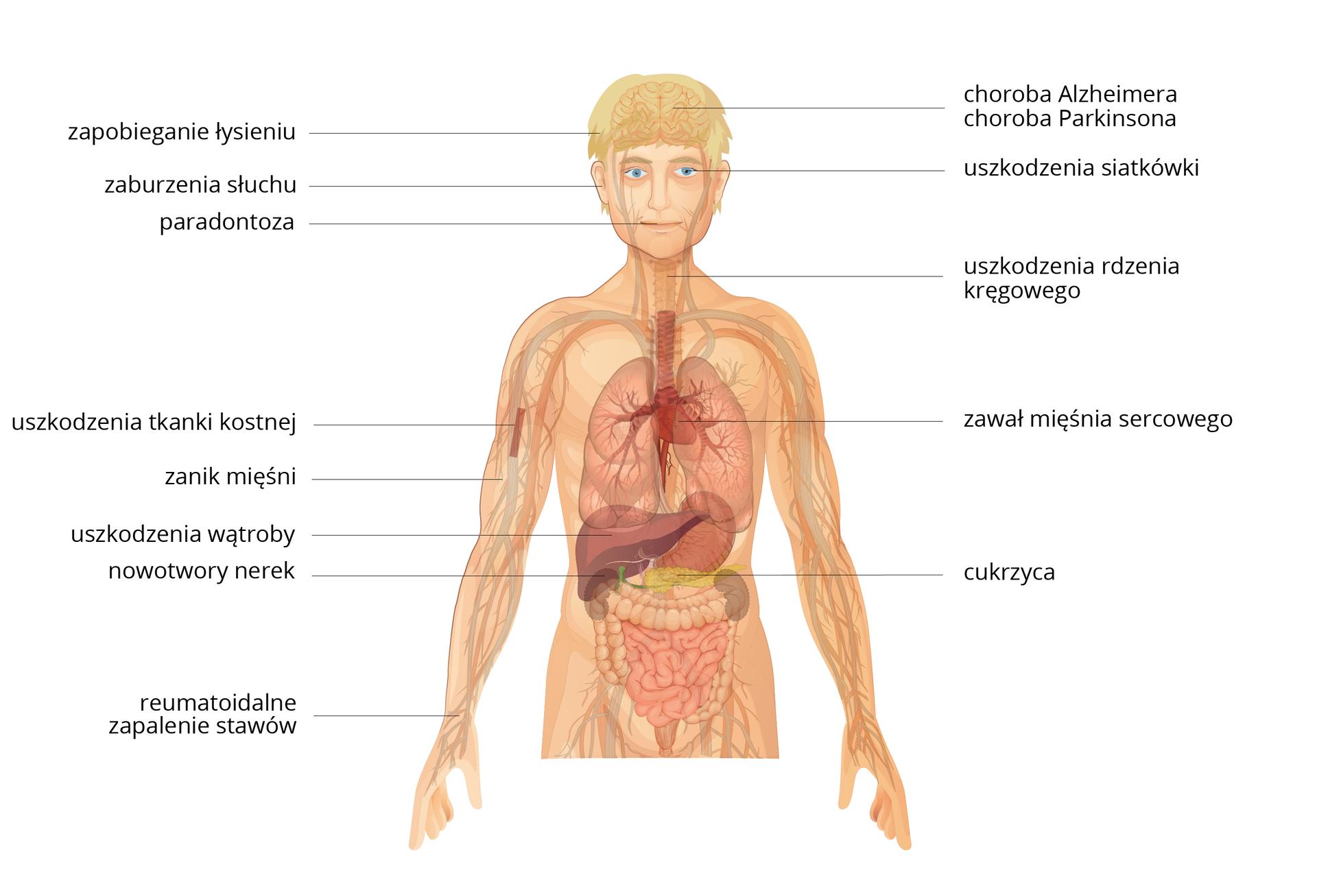 SIlustracja przedstawia sylwetkę człowieka zwrysowanymi narządami. Linie zopisami wskazują jednostki chorobowe, które można leczyć zwykorzystaniem terapii komórkowej.