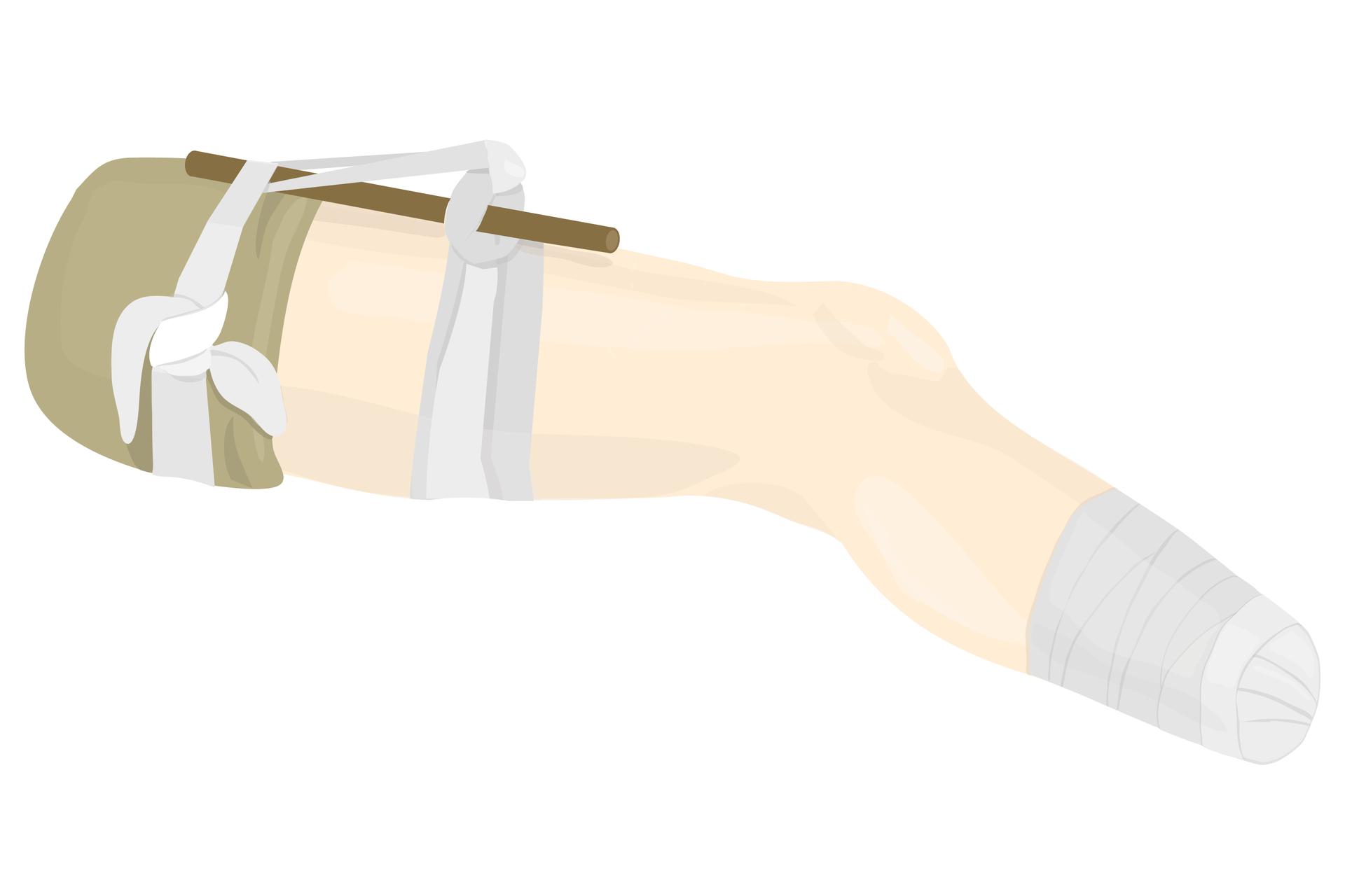 Ilustracja przedstawia sposób stosowania opaski uciskowej na nodze, po amputacji stopy powyżej kostki. Noga poszkodowanego bokiem do obserwatora. Noga zwrócona kolanem wprawą stronę. Wokół uda dwie opaski uciskowe. Opaski wykonane zbandażu. Opaska po lewej na wysokości pachwiny, opaska po prawej wpołowie uda. Krótki kij wetknięty jest pod lewą opaskę iprzeciągnięty przez węzeł prawej opaski uciskowej. Miejsce po amputacji, poniżej kolana, jest obwiązane bandażem.