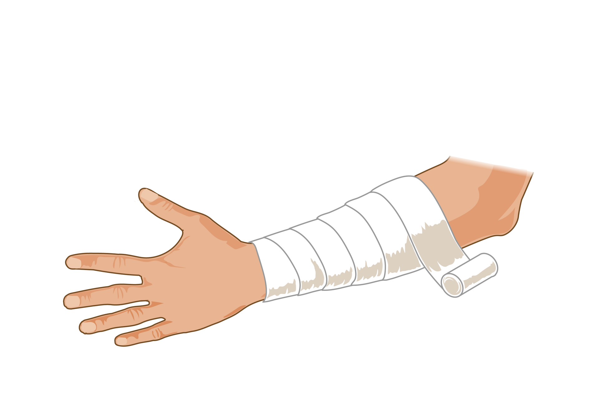 Ilustracja przedstawia zabezpieczanie rany. Lewa ręka ukazana od dłoni zwyprostowanymi palcami po lewej stronie rysunku do łokcia po prawej stronie skierowana jest zewnętrzną stroną do obserwatora. Całe przedramię, od nadgarstka do łokcia jest owinięte białym bandażem. Bandaż nawinięty spiralnie od nadgarstka kończy się wokolicy łokcia rolką.