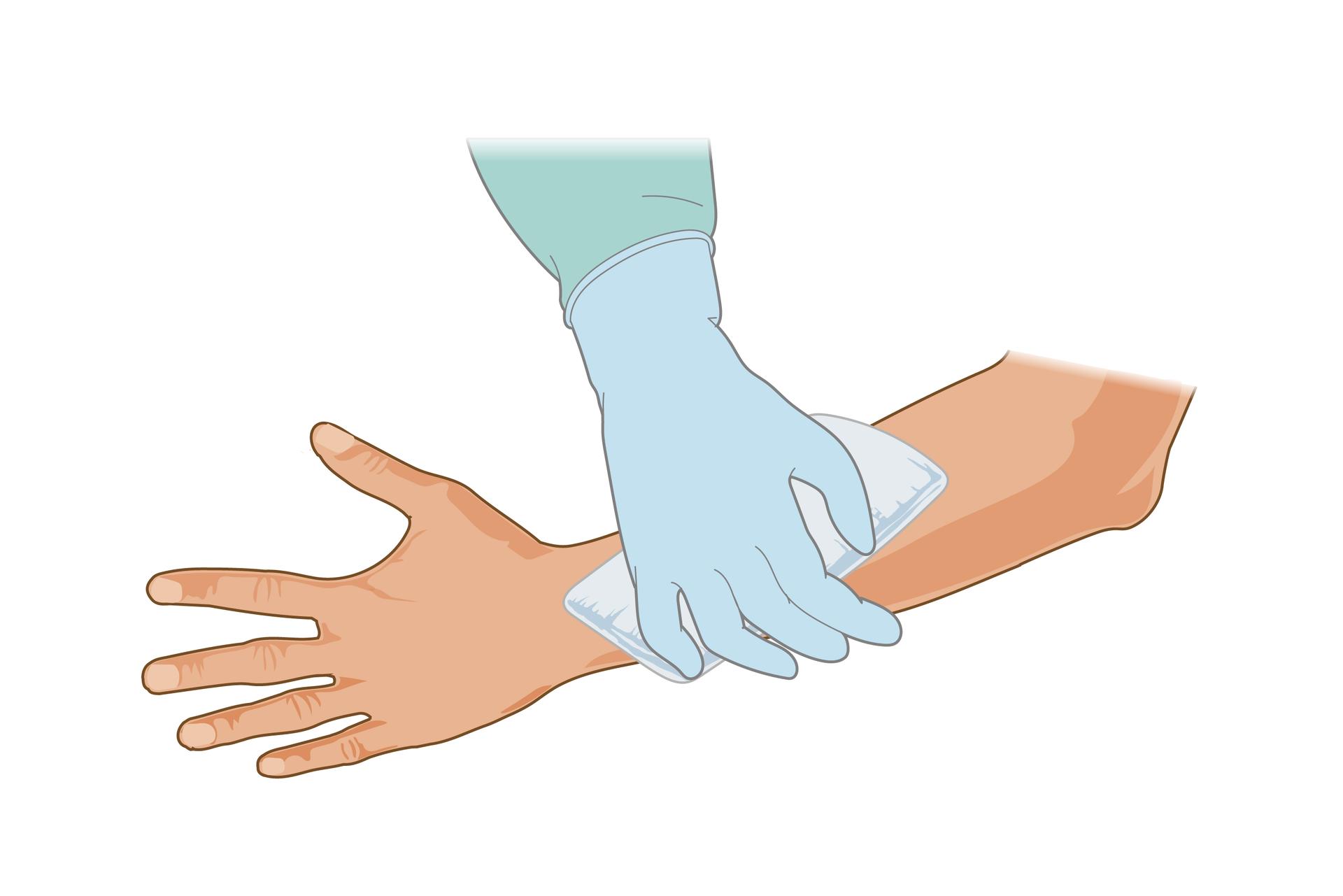 Ilustracja przedstawia zabezpieczanie rany. Lewa ręka ukazana od dłoni zwyprostowanymi palcami po lewej stronie rysunku do łokcia po prawej stronie skierowana jest zewnętrzną stroną do obserwatora. Przemytą już ranę dłoń sanitariusza wgumowej rękawiczce okłada opatrunkiem zgazy. Opatrunek zakrywa całą ranę.