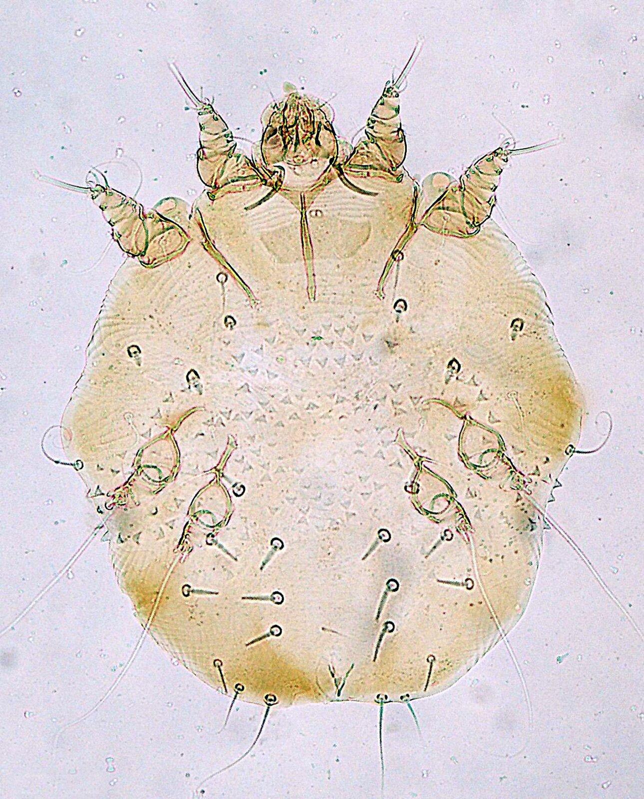 Fotografia mikroskopowa przedstawia okrągłego, beżowego świerzbowca. Ugóry wśrodku część głowowa zczarnymi liniami. Po jej obu stronach po dwa stożkowate, segmentowane odnóża. Na ciele rzadkie, sterczące włoski oraz cztery niewielkie kuliste odnóża zdługimi wyrostkami.
