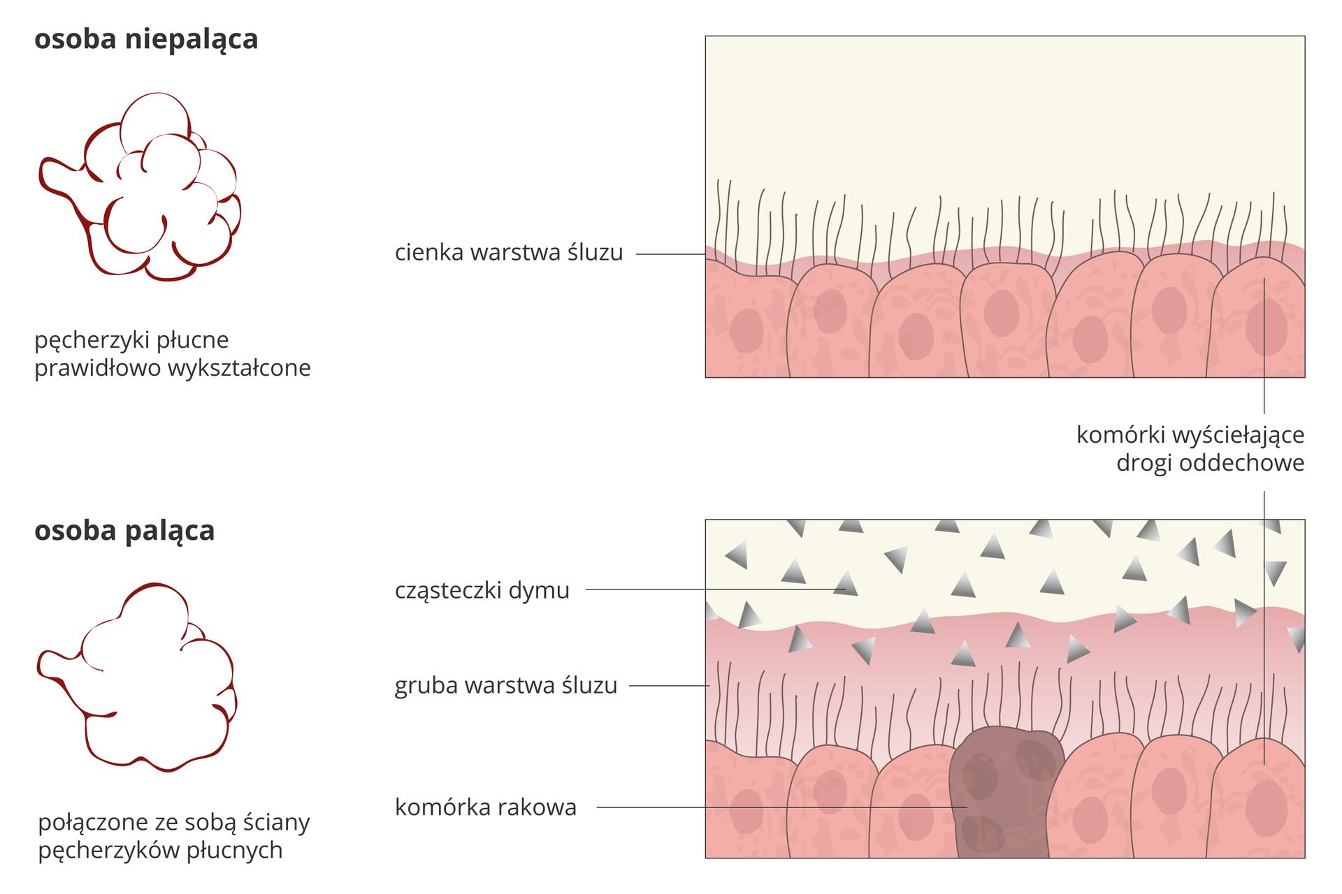 Ilustracja przedstawia schematycznie 4 rysunki, porównujące budowę dróg oddechowych uosoby niepalącej (górny rząd) iupalącej. Zlewej znajdują się pęcherzyki płucne. Upalacza (na dole) ich ściany łączą się ze sobą. Zprawej powiększenie nabłonka dróg oddechowych. Upalacza dodano dym wpostaci szarych trójkątów. Warstwa śluzu jest gruba iprzykrywa rzęski. Między różowymi komórkami jest ciemna komórka rakowa.