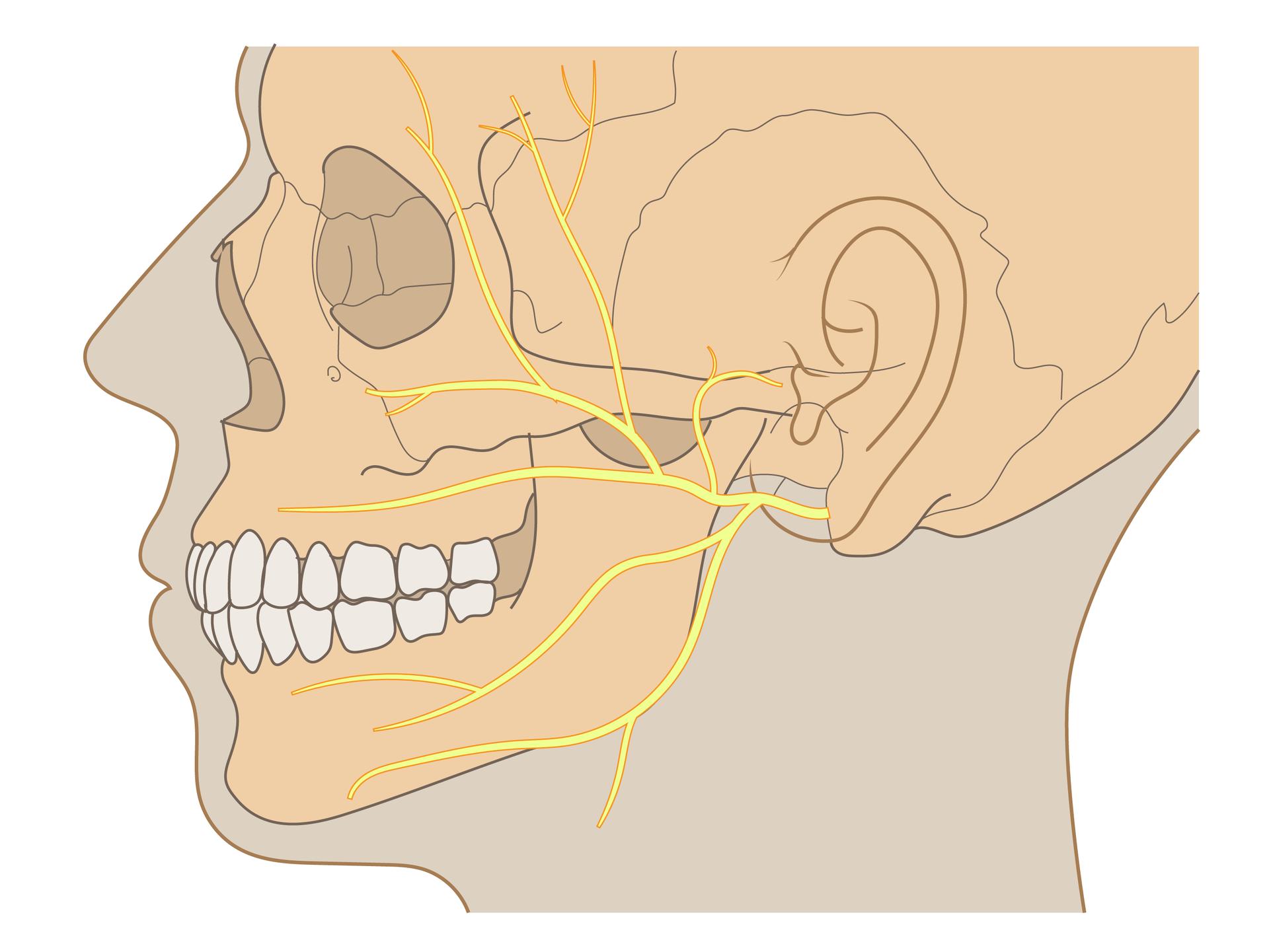 Ilustracja przedstawia sylwetkę głowy człowieka, profil wlewo. Wewnątrz beżowa czaszka. Brązową linią narysowane ucho. Żółte rozgałęzione linie oznaczają nerw twarzowy, który przekazuje informacje zmózgu do mięśni twarzy, do ucha iślinianek.
