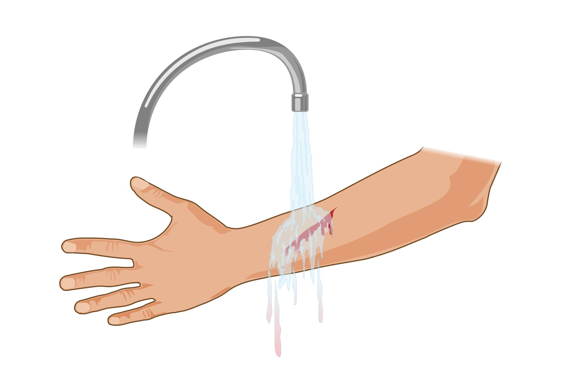 Ilustracja przedstawia przemywanie rany. Lewa ręka ukazana od dłoni zwyprostowanymi palcami po lewej stronie rysunku do łokcia po prawej stronie skierowana jest zewnętrzną stroną do obserwatora. Mniej więcej wpołowie przedramienia kilkucentymetrowa krwawiąca rana cięta. Powyżej kran zodkręconą wodą. Strumień obmywa ranę spłukując krew.